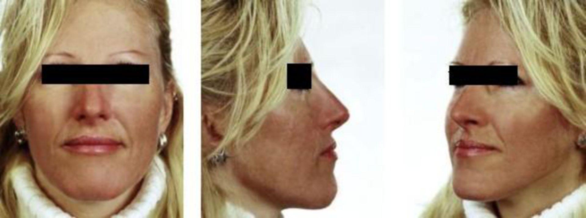 Status post nasal surgery