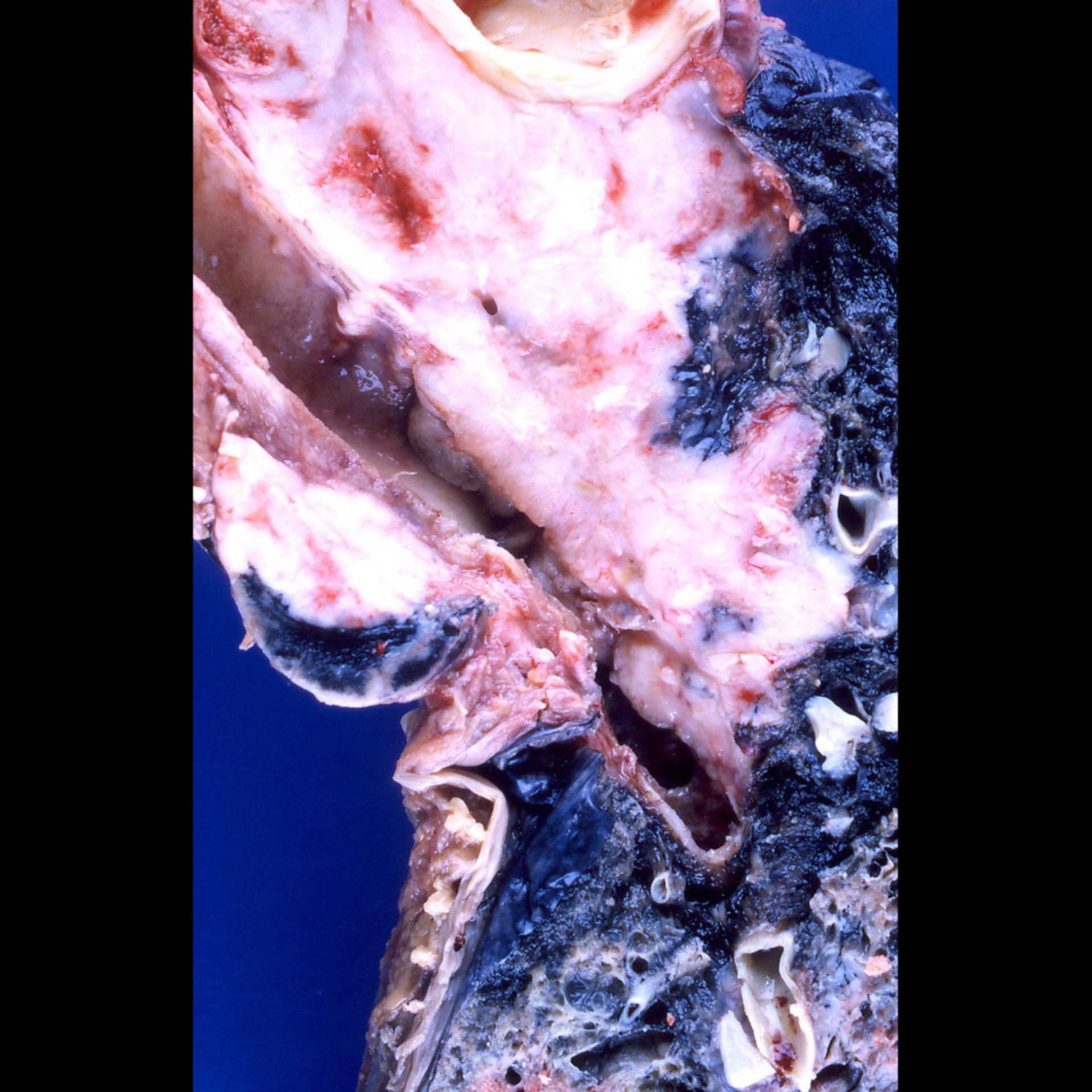 Carcinoma broncogeno a piccole cellule