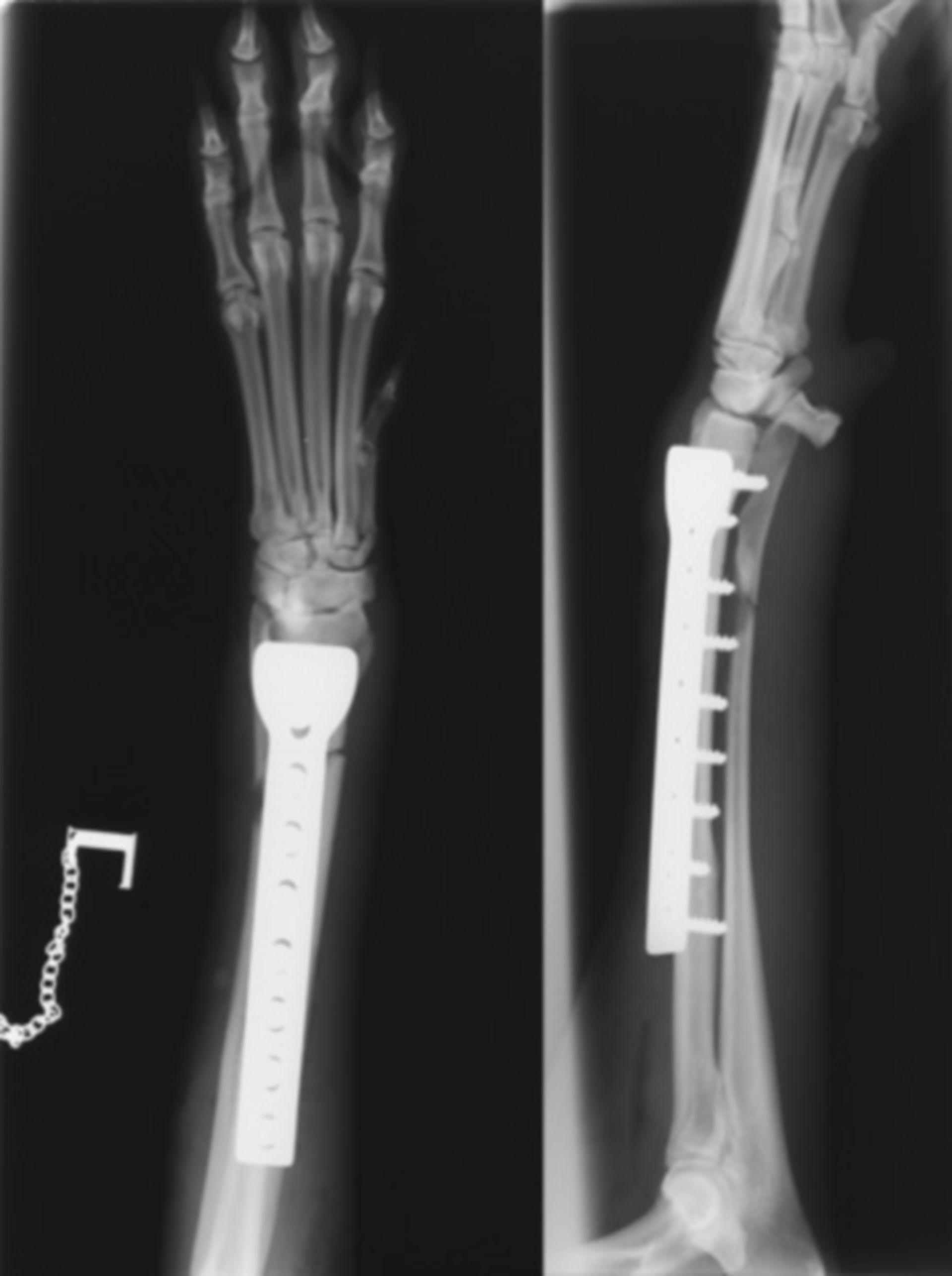 Piastra di fissazione della frattura degli arti anteriori