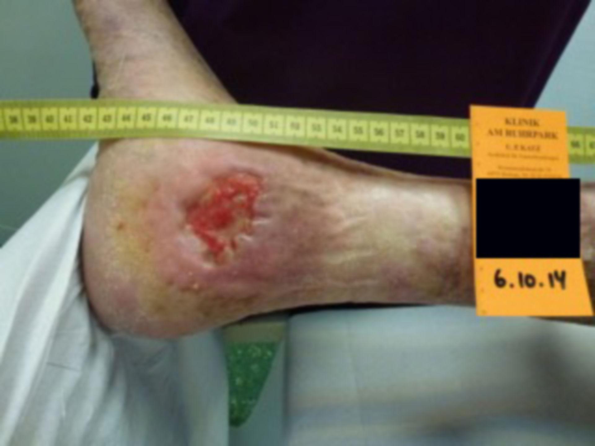 Úlcera de la pierna - abierta por 40 años (29)