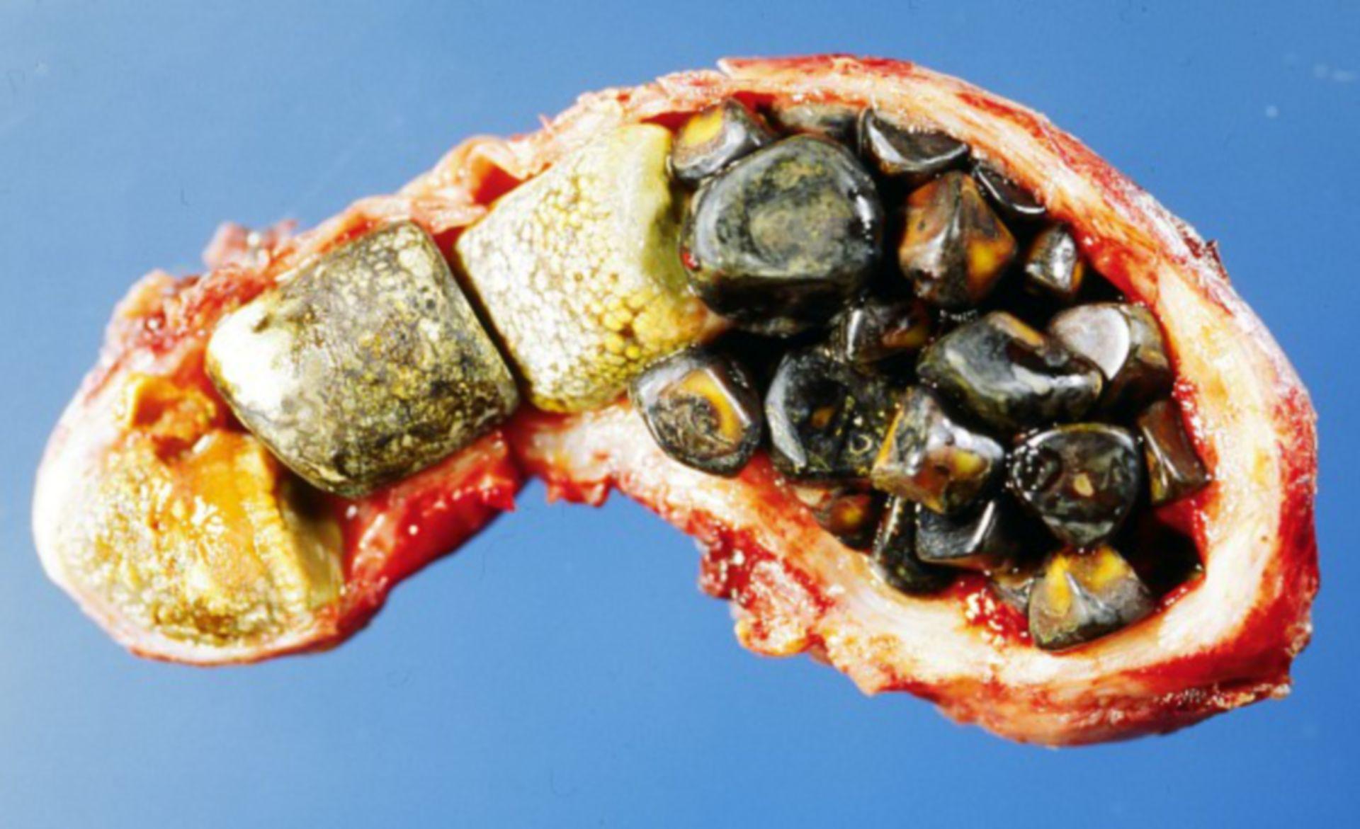 Multiple gallstones
