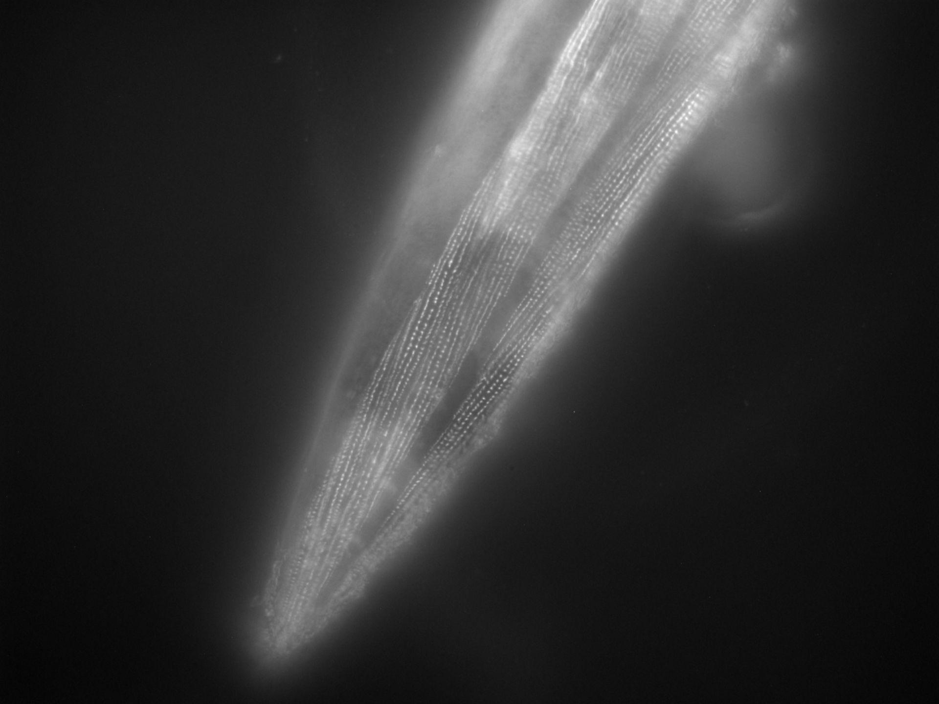 Caenorhabditis elegans (Actin filament) - CIL:1106