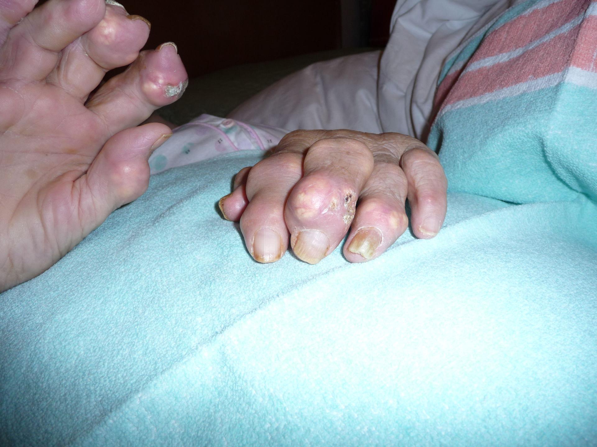 Severe gout