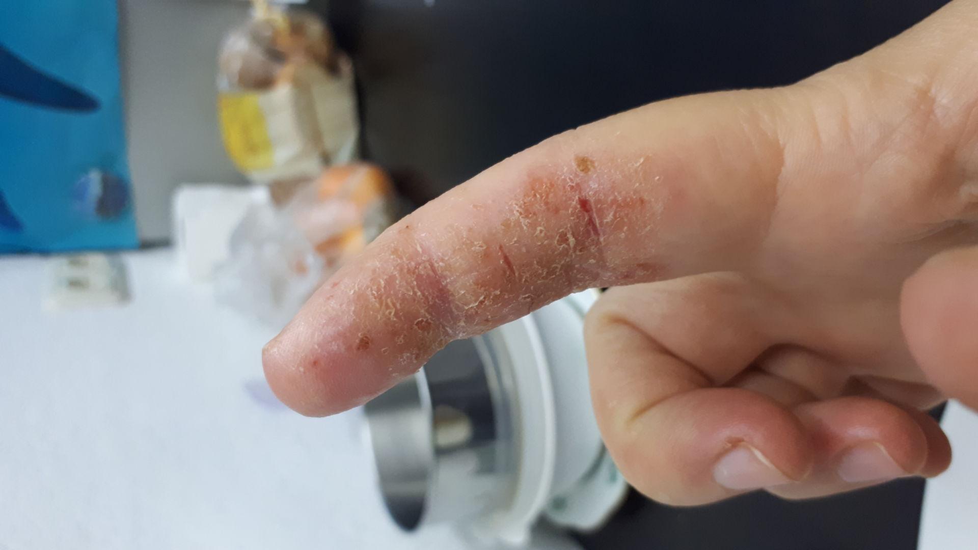 Zeigefinger mit Schuppen und Krusten