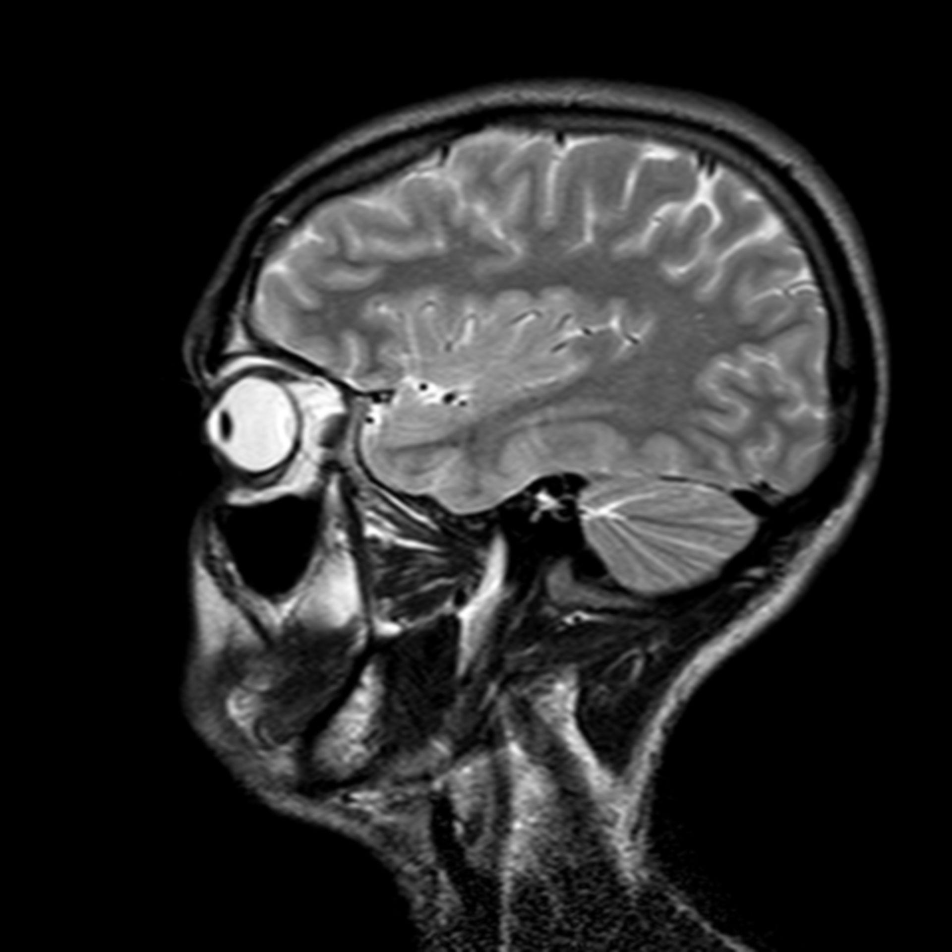 (09/34) MRT Schädel in Sagittalebene, T₂‐gewichtet