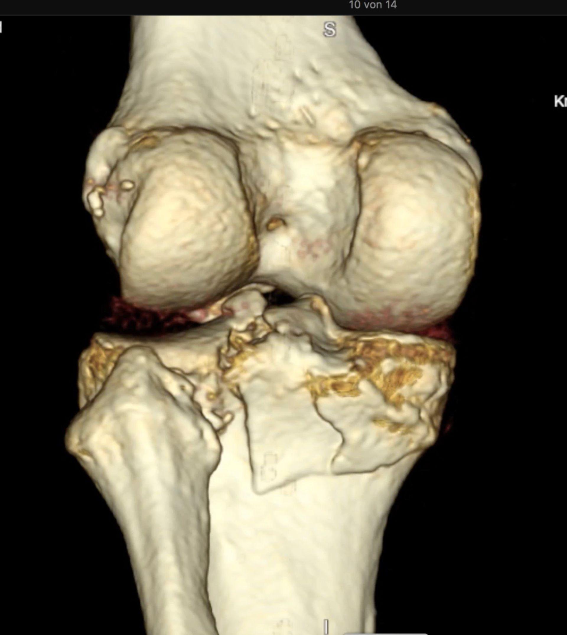3D-Rekonstruktion des Kniegelenkes bei Tibiakopffraktur