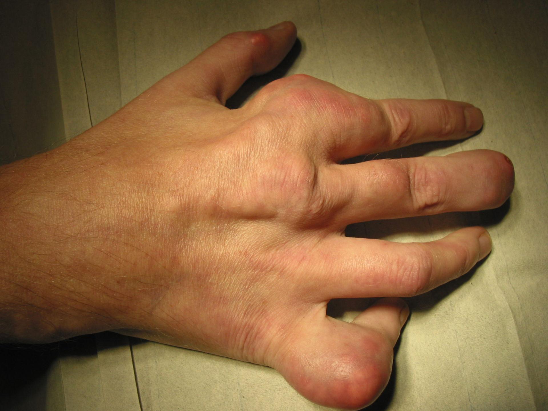 Gota afectando la mano derecha