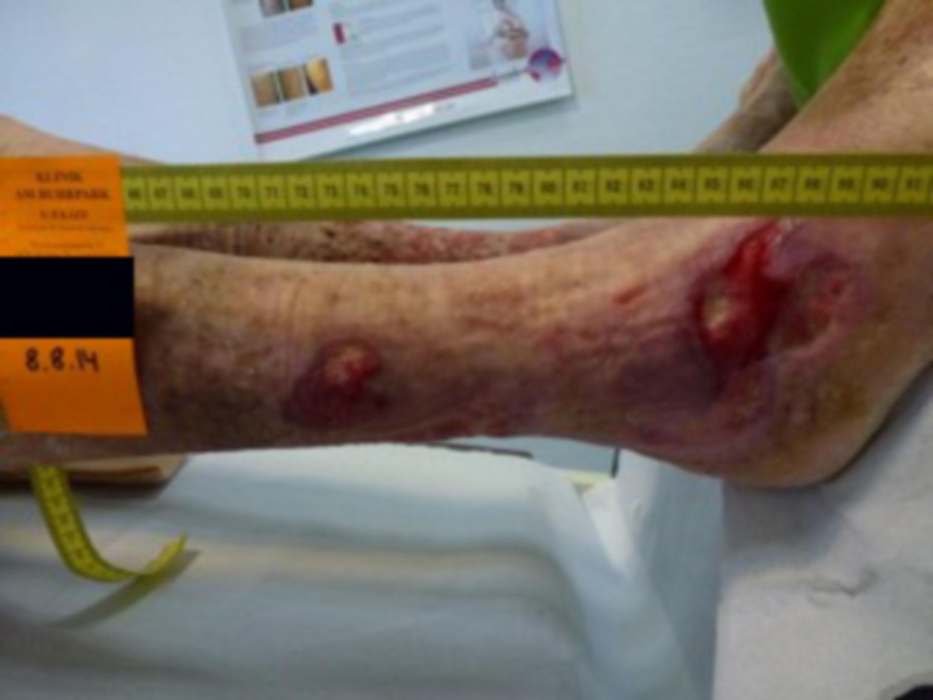 Úlcera de la pierna - abierta por 40 años (19)
