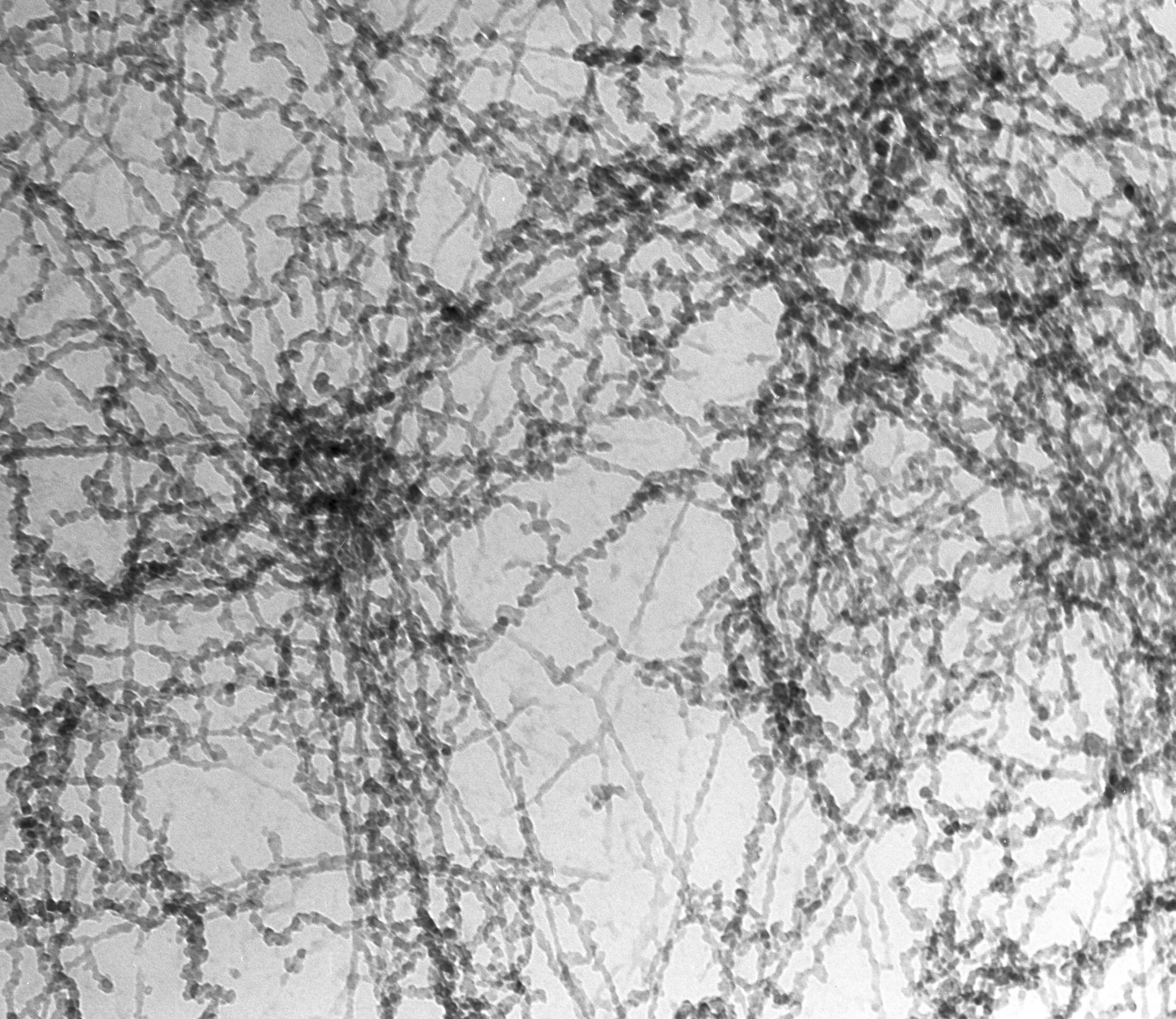 Notopthalmus viridescence (Nuclear chromatin) - CIL:10086