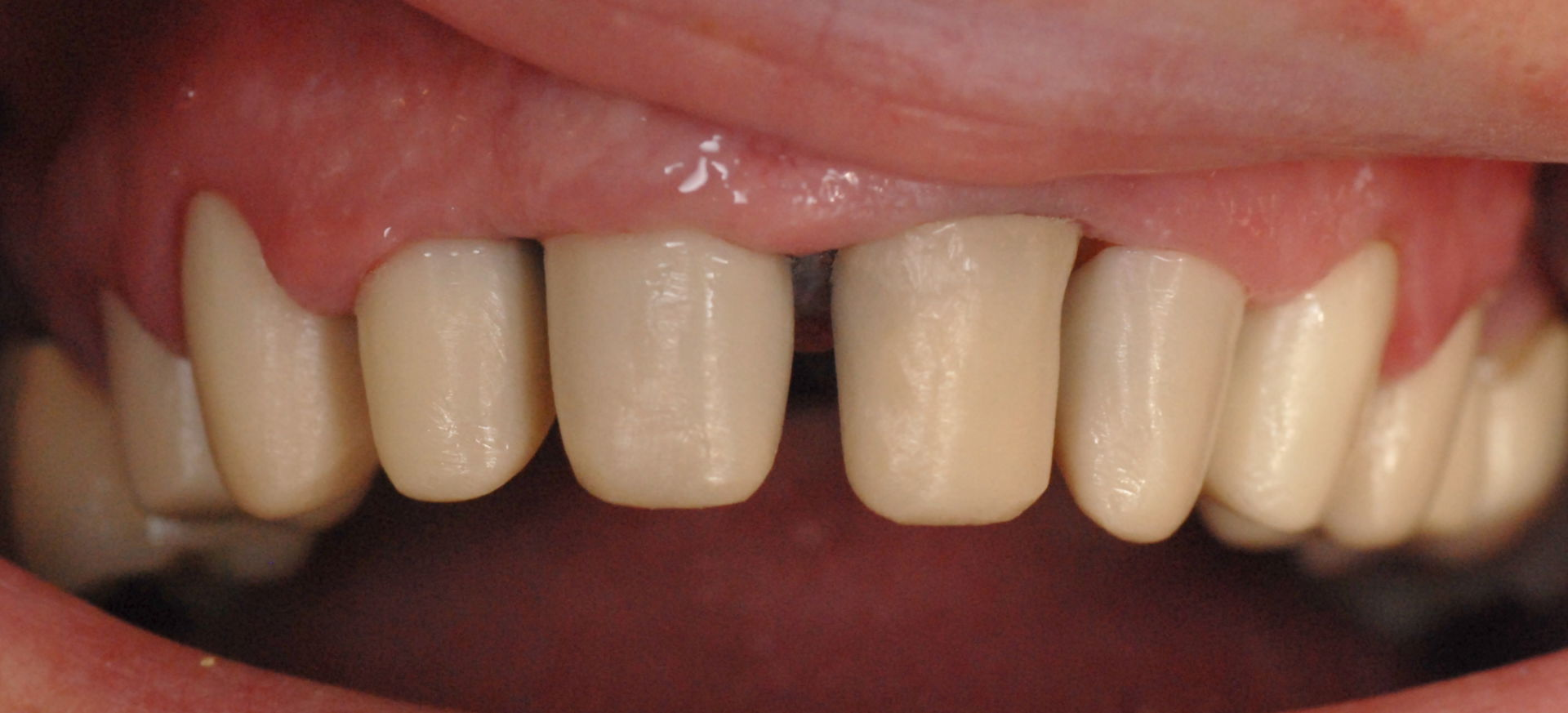 Fitting of the zirconia cap prosthetic in the mouth