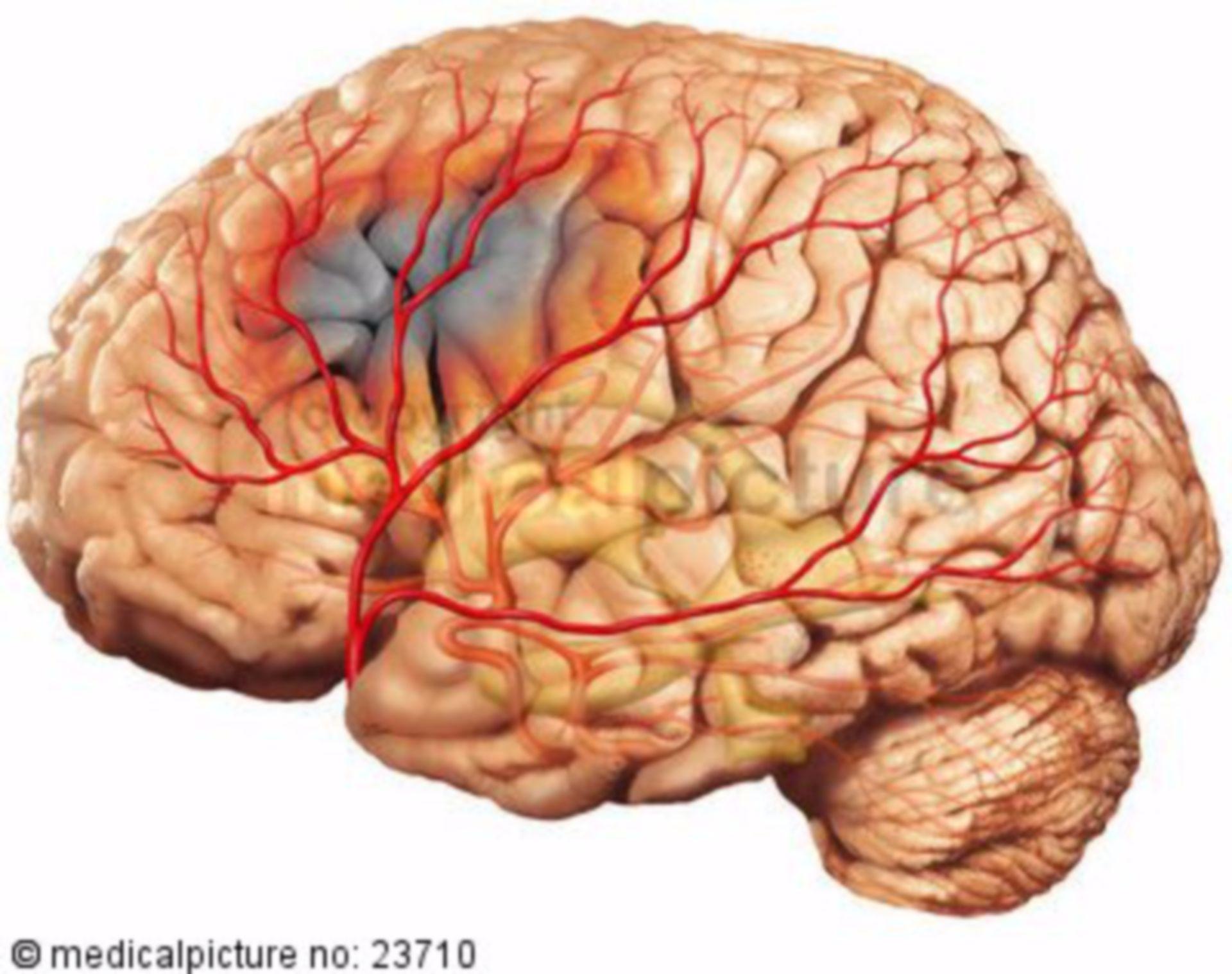 Depolerisation waves in ischemic stroke/ infaction