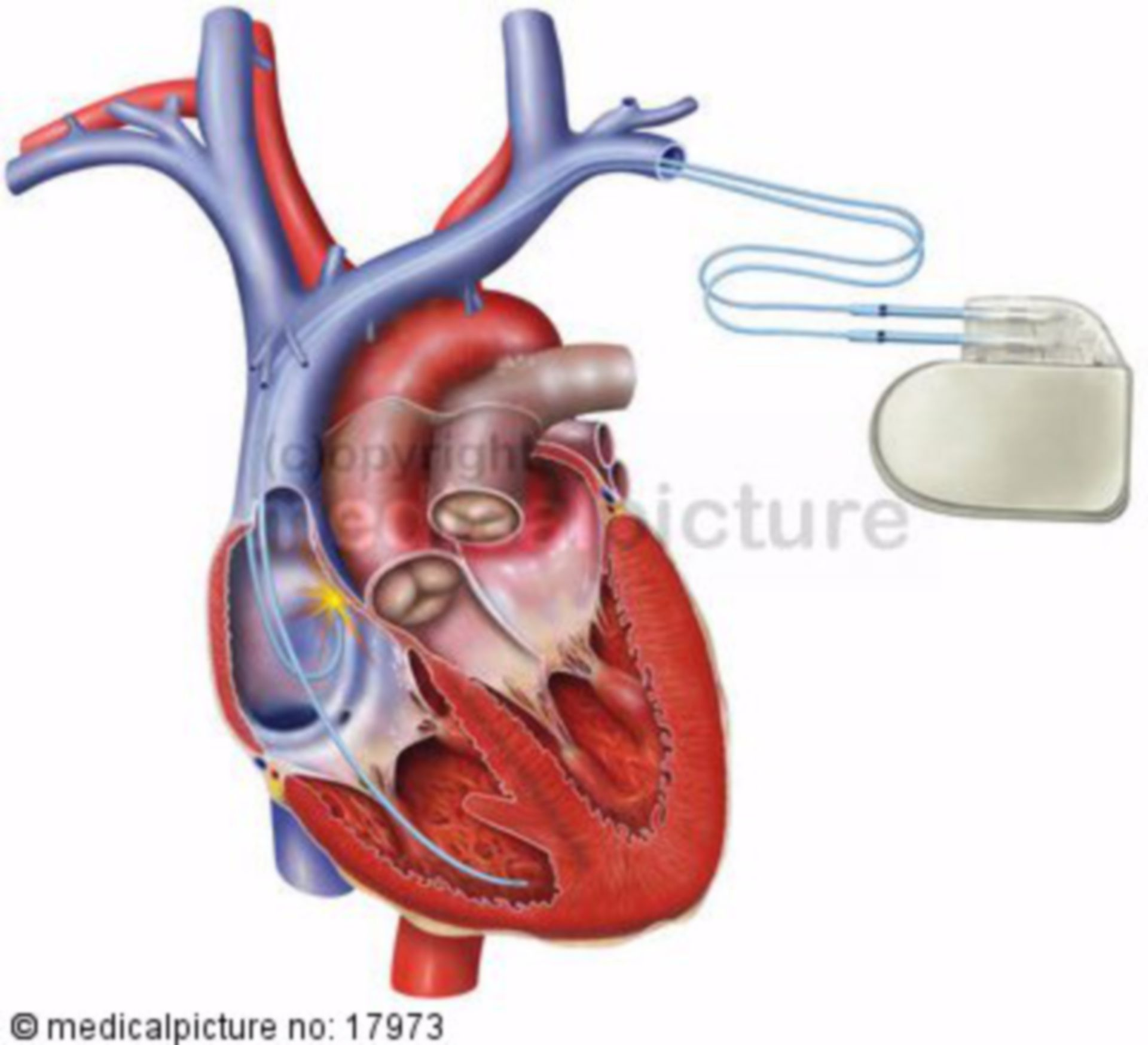 Heart with pacemaker (shock)