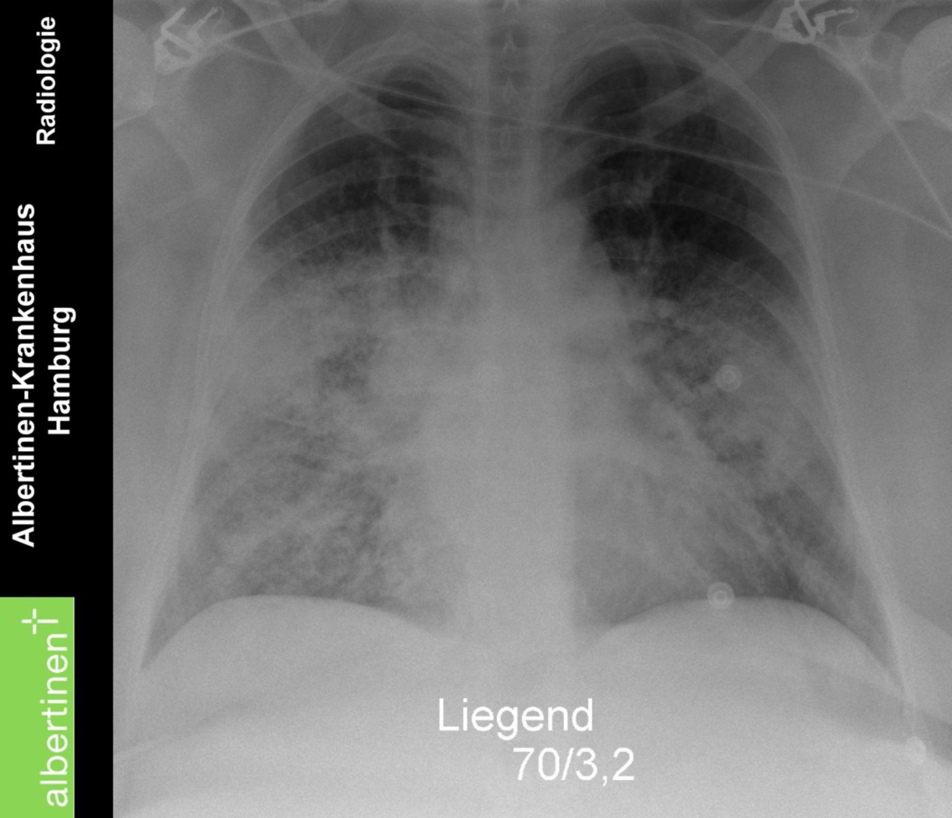 Radiologia torace sindrome da distress respiratorio