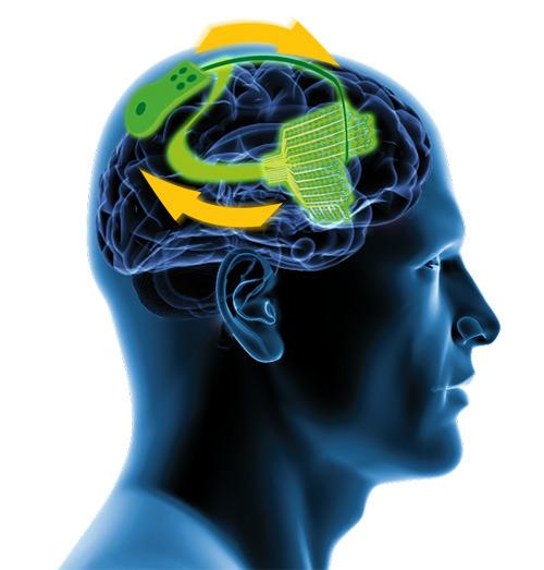 Sensoren auf dem Gehirn messen dessen Aktivität. Pathologische Veränderungen führen zu einer Stimulation durch eine implantierte Elektrode und das wiederum zur Normalisierung der Hirnaktivität. © BrainLinks-BrainTools / Universität Freiburg