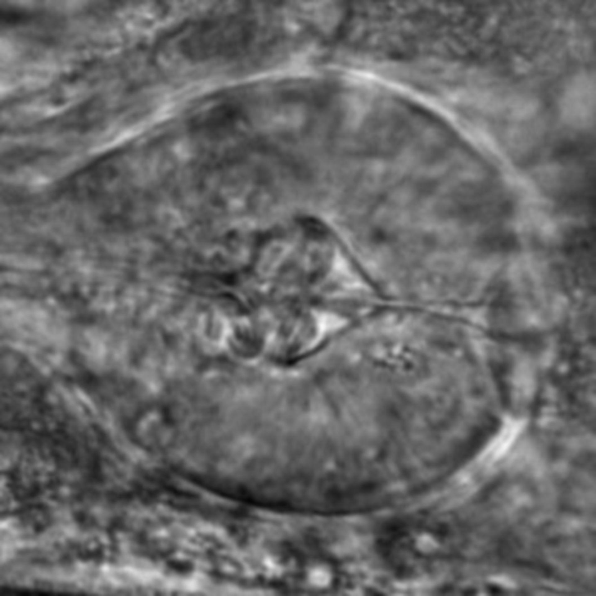 Caenorhabditis elegans - CIL:2737