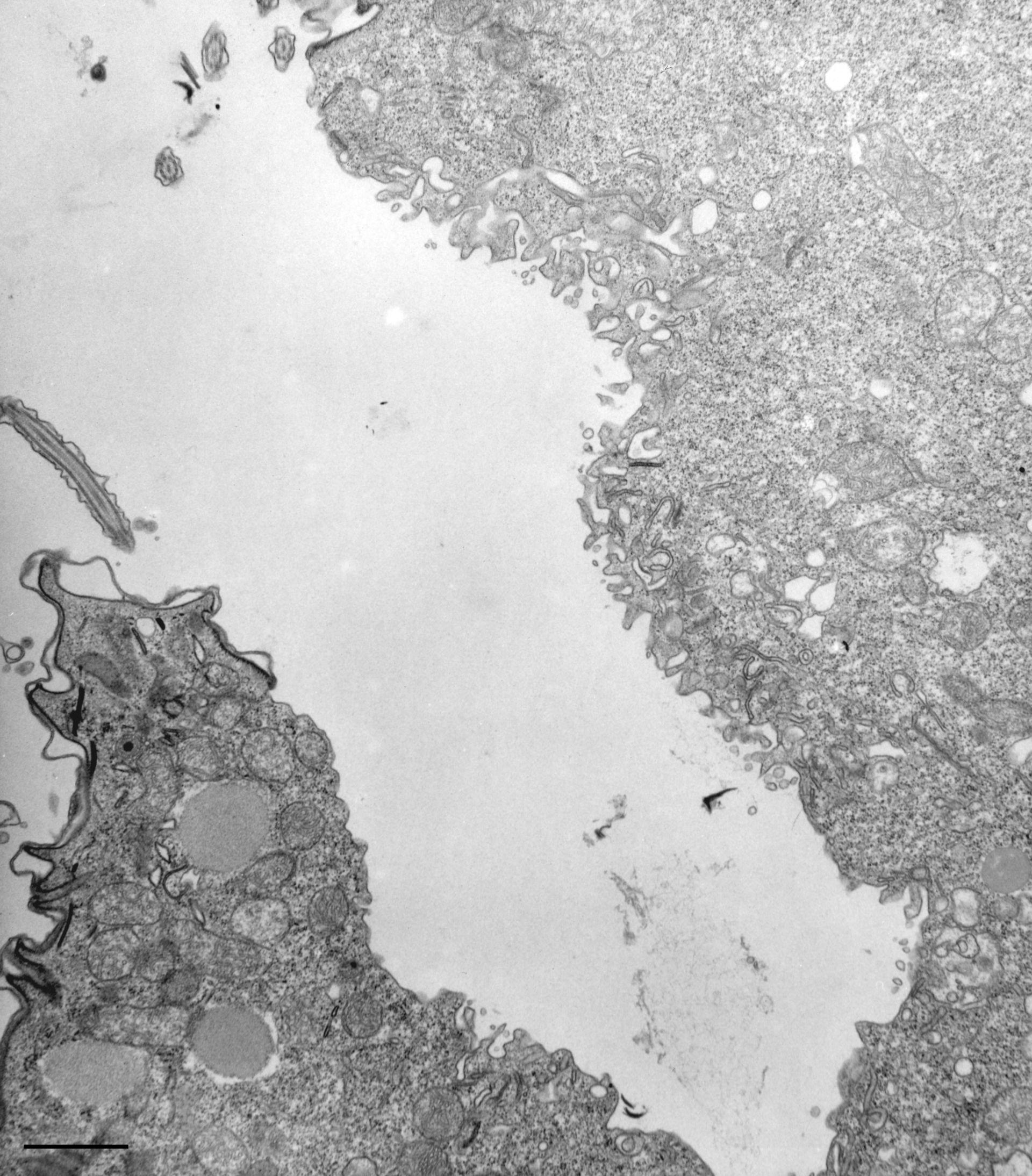 Paramecium multimicronucleatum (Citoplasma) - CIL:13132