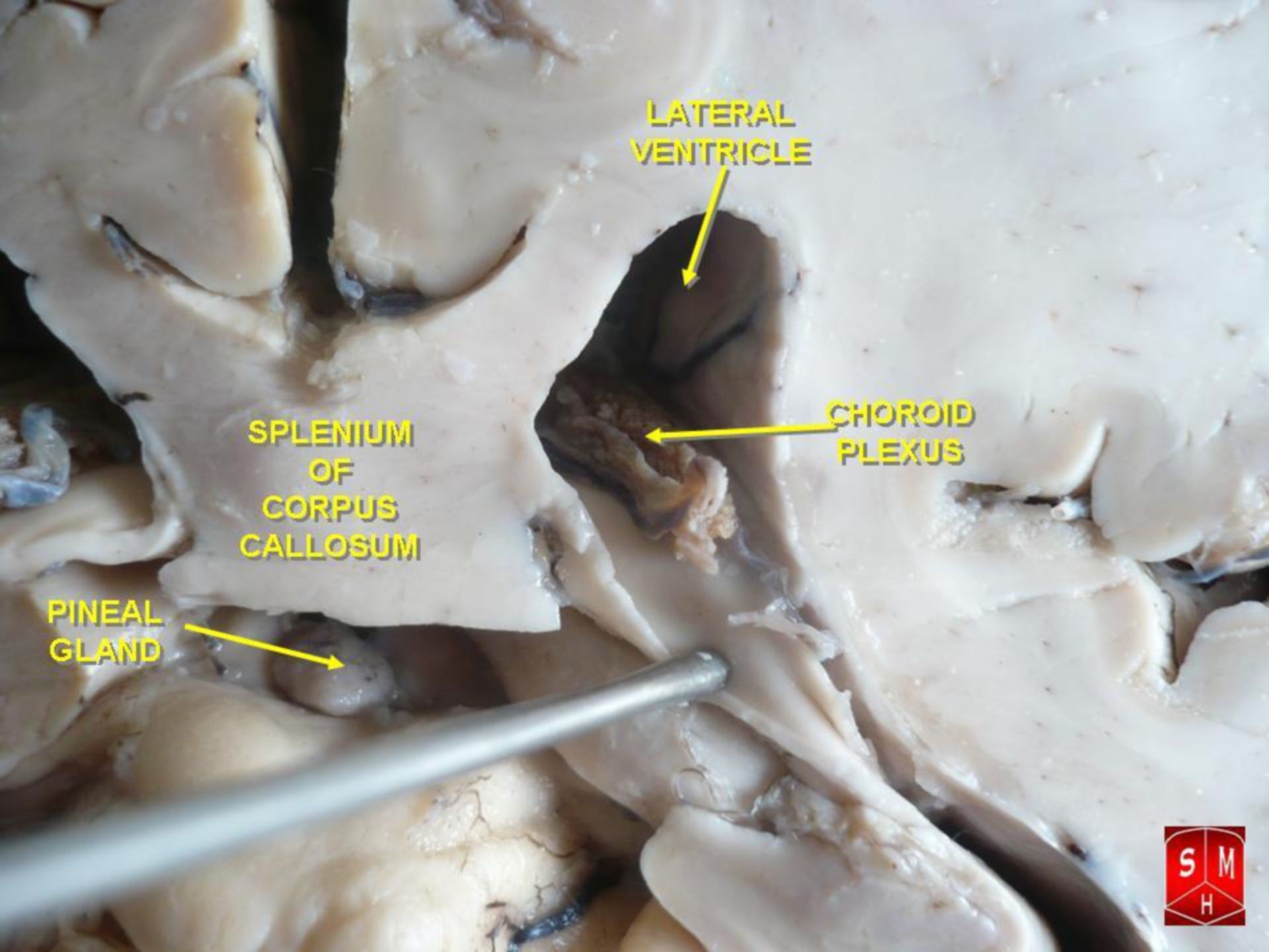 Plexus Choroideus