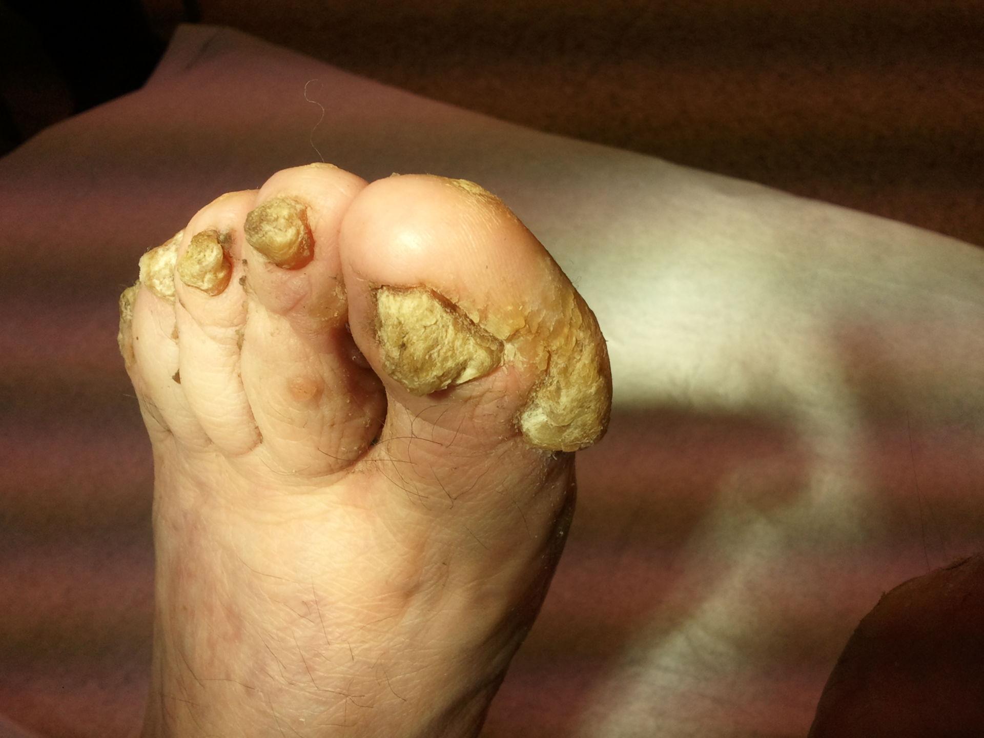 Hiperqueratosis del dedo