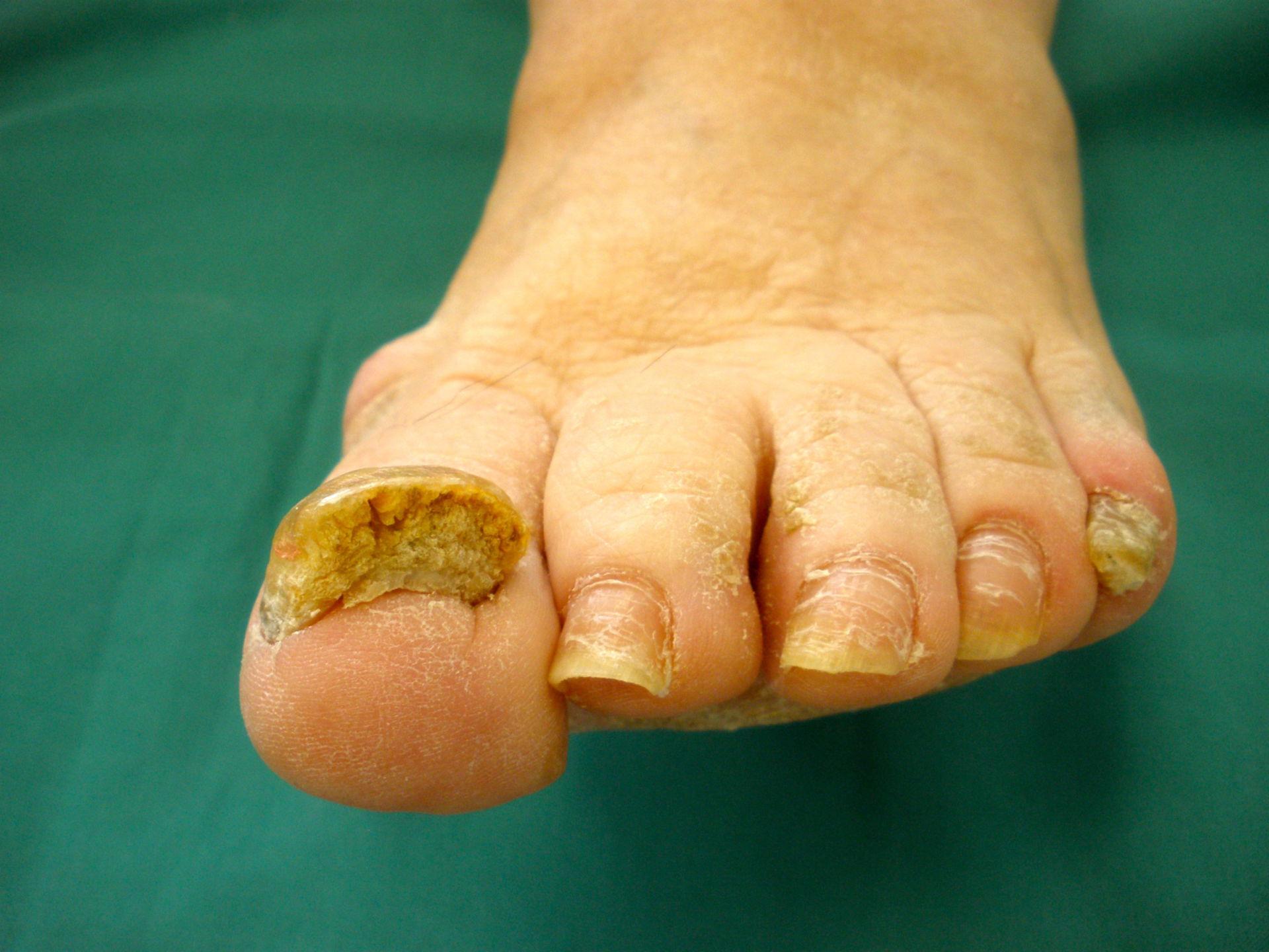 Psoriasis vulgaris e artropática