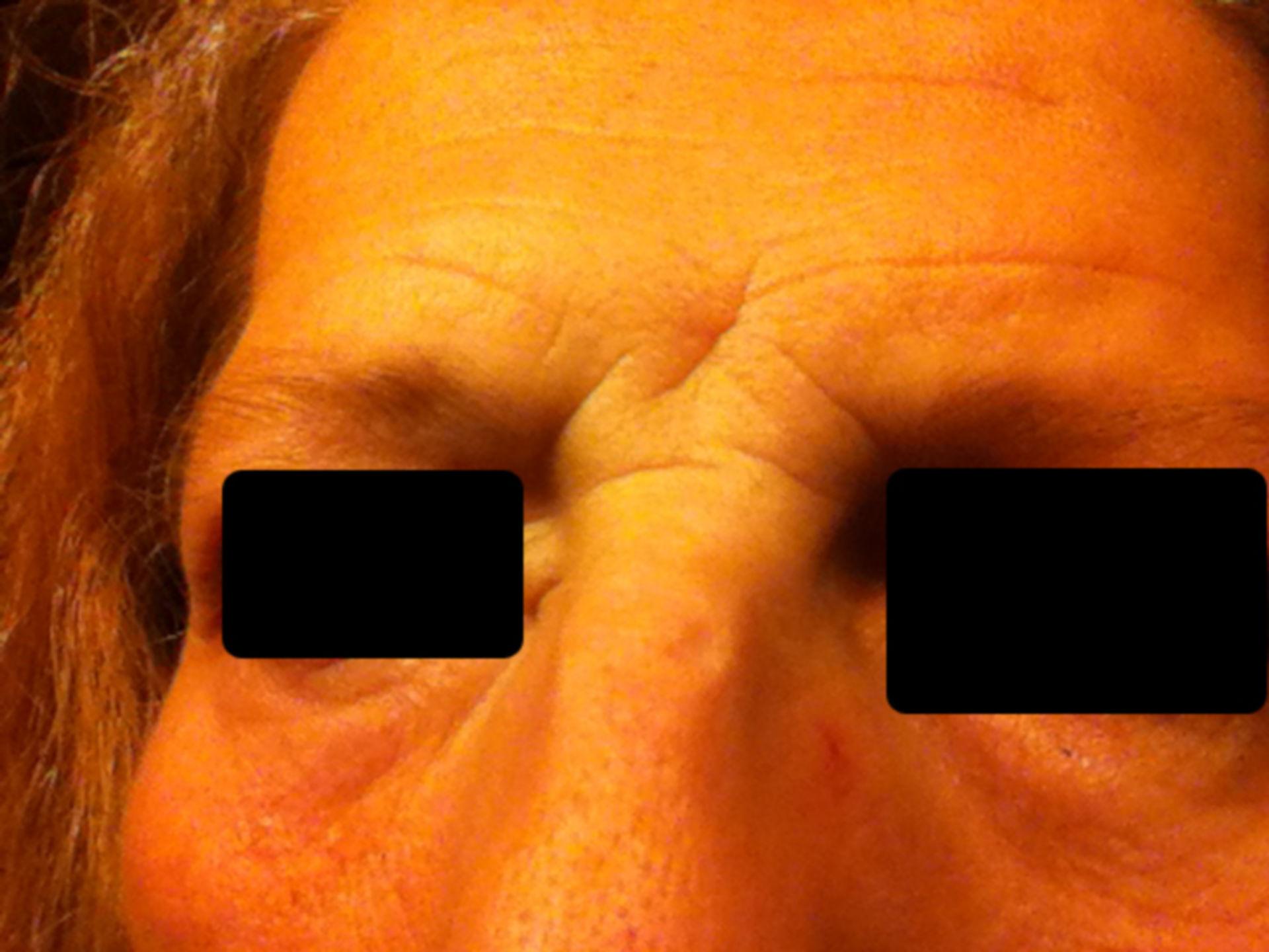 Schwellung Gesicht 1