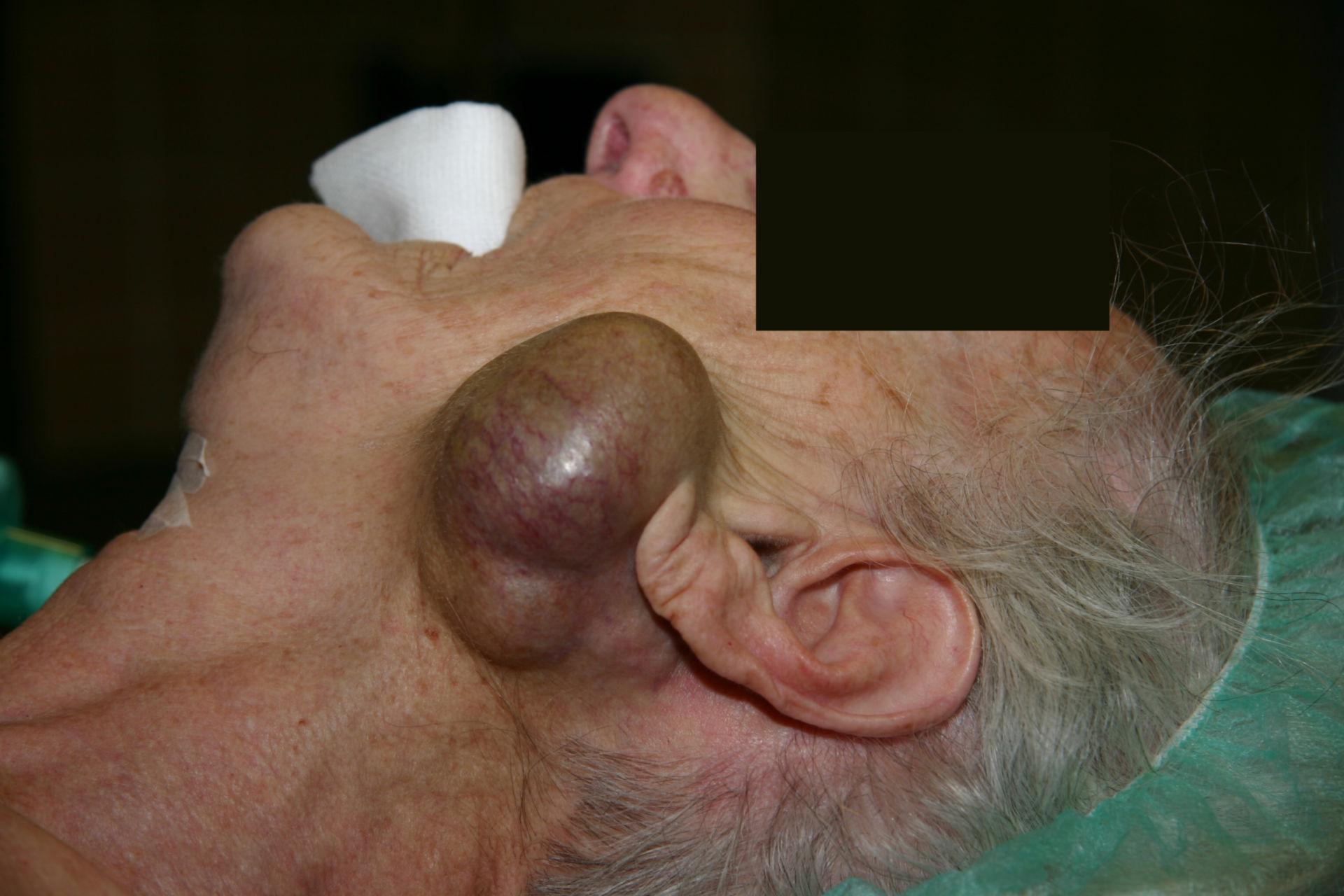 Parotid gland tumor