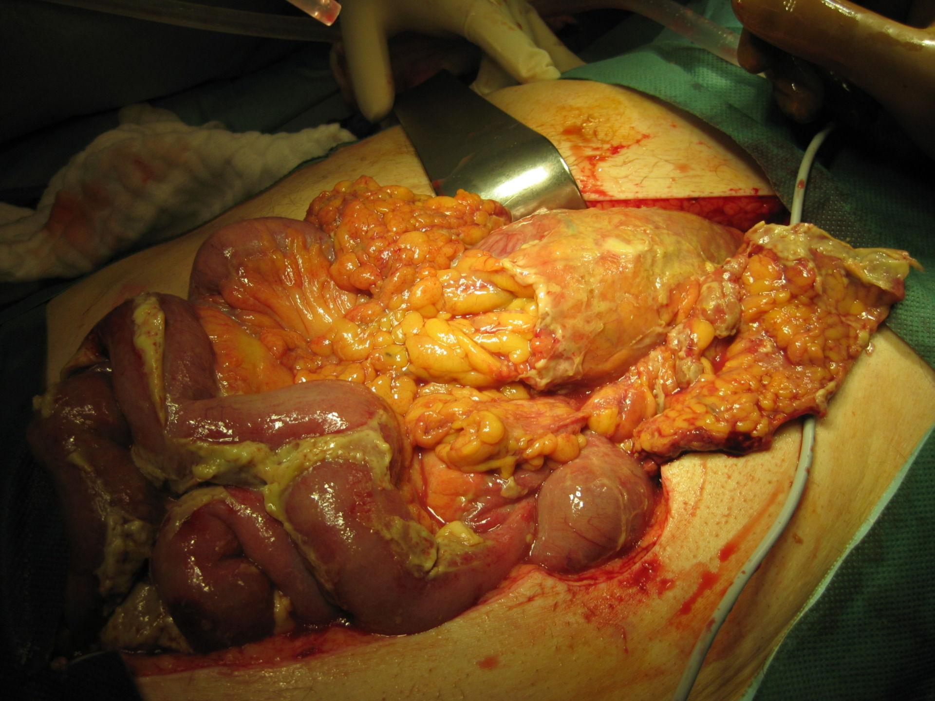 Diffuse Peritonitis