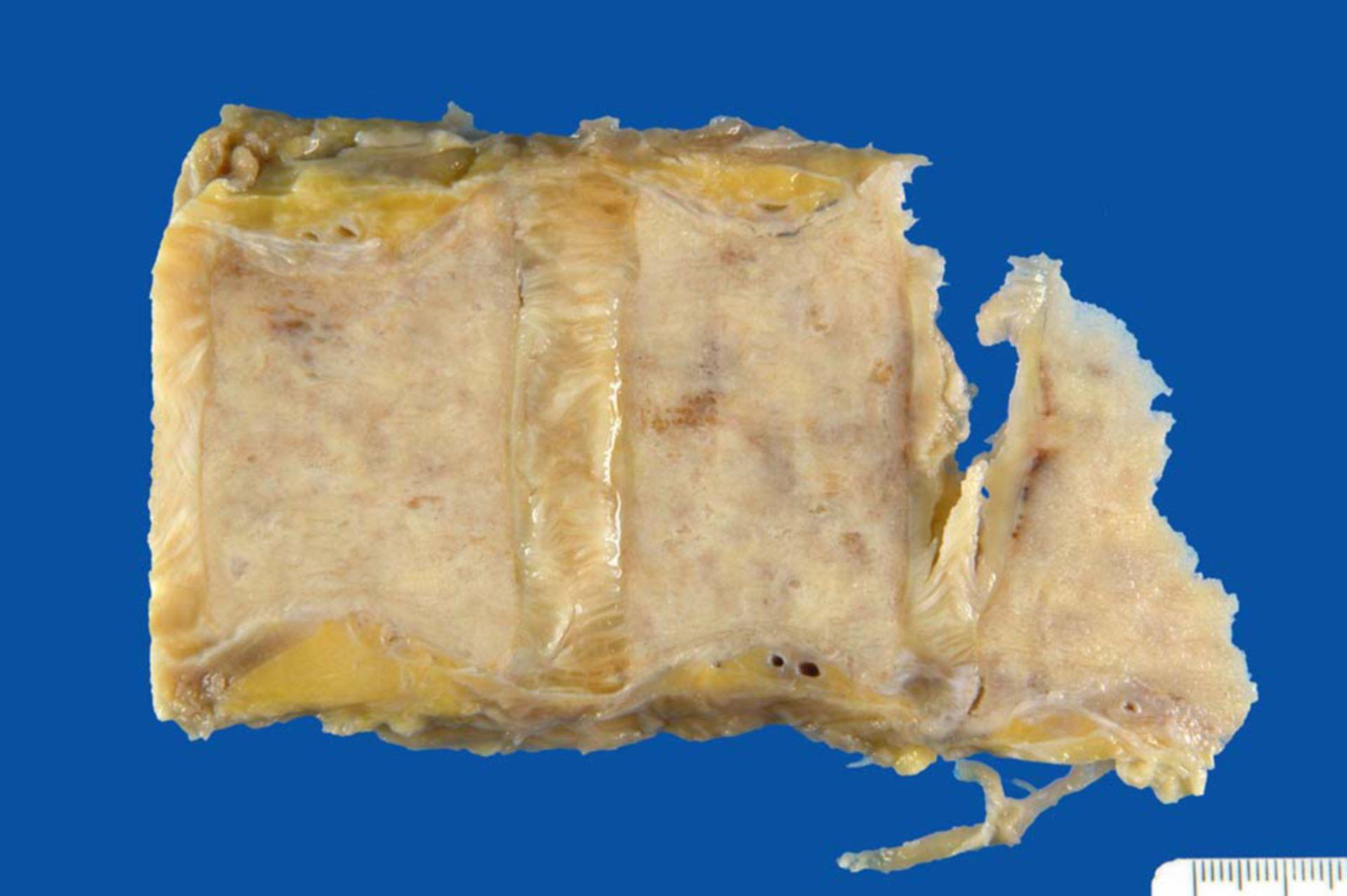 Prostatakarzinom: Osteoblastische Knochenmetastasen