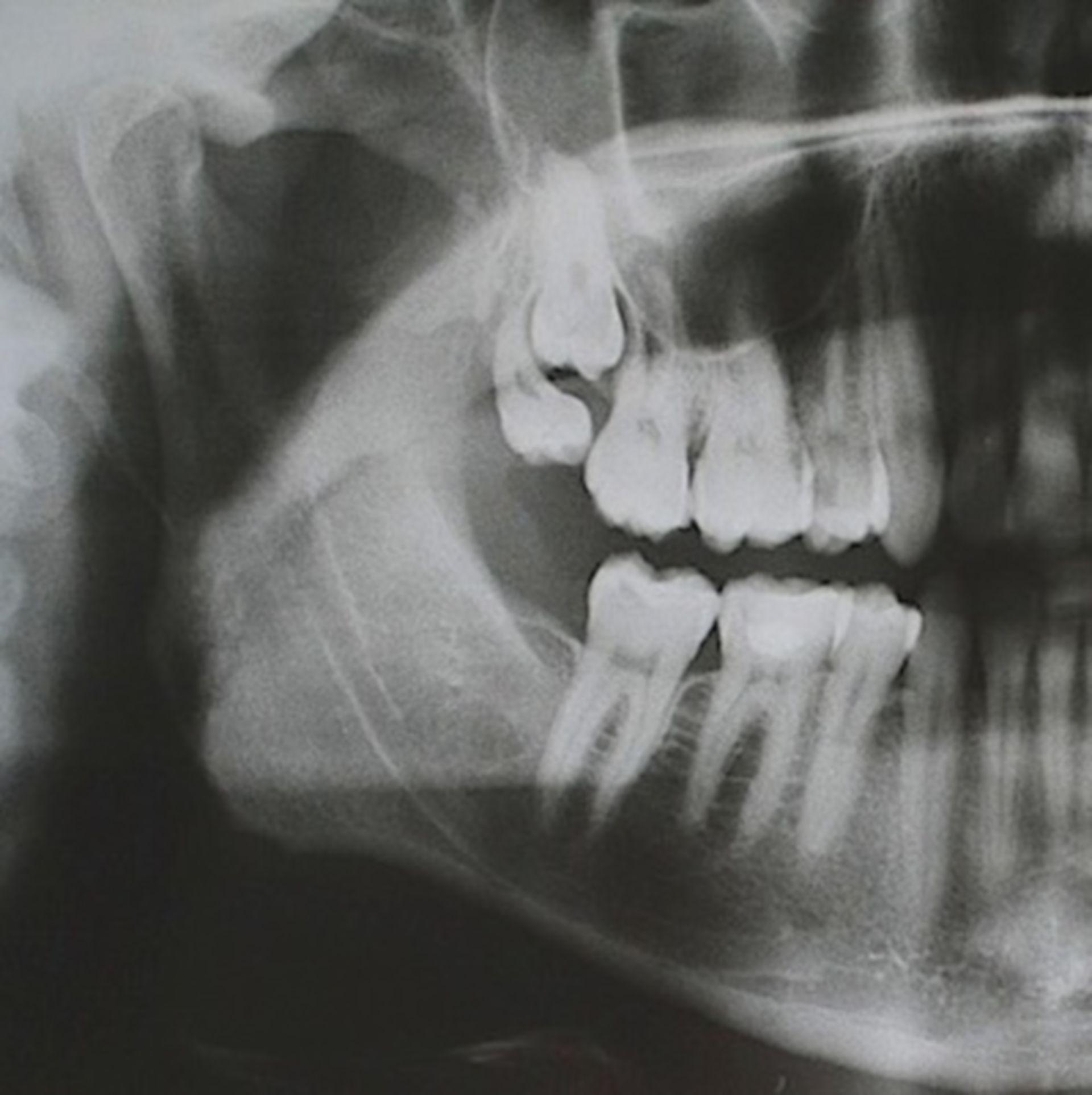 Mandibola superiore - Denti del giudizio 19 e 18