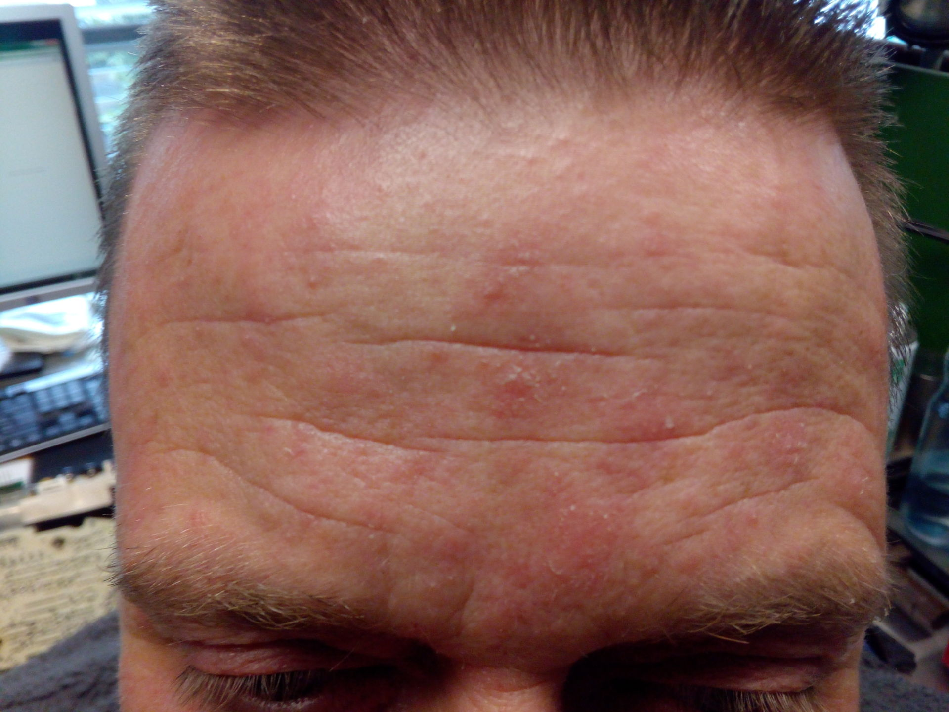 Drug eruption of Amoxicillin and combination on forehead