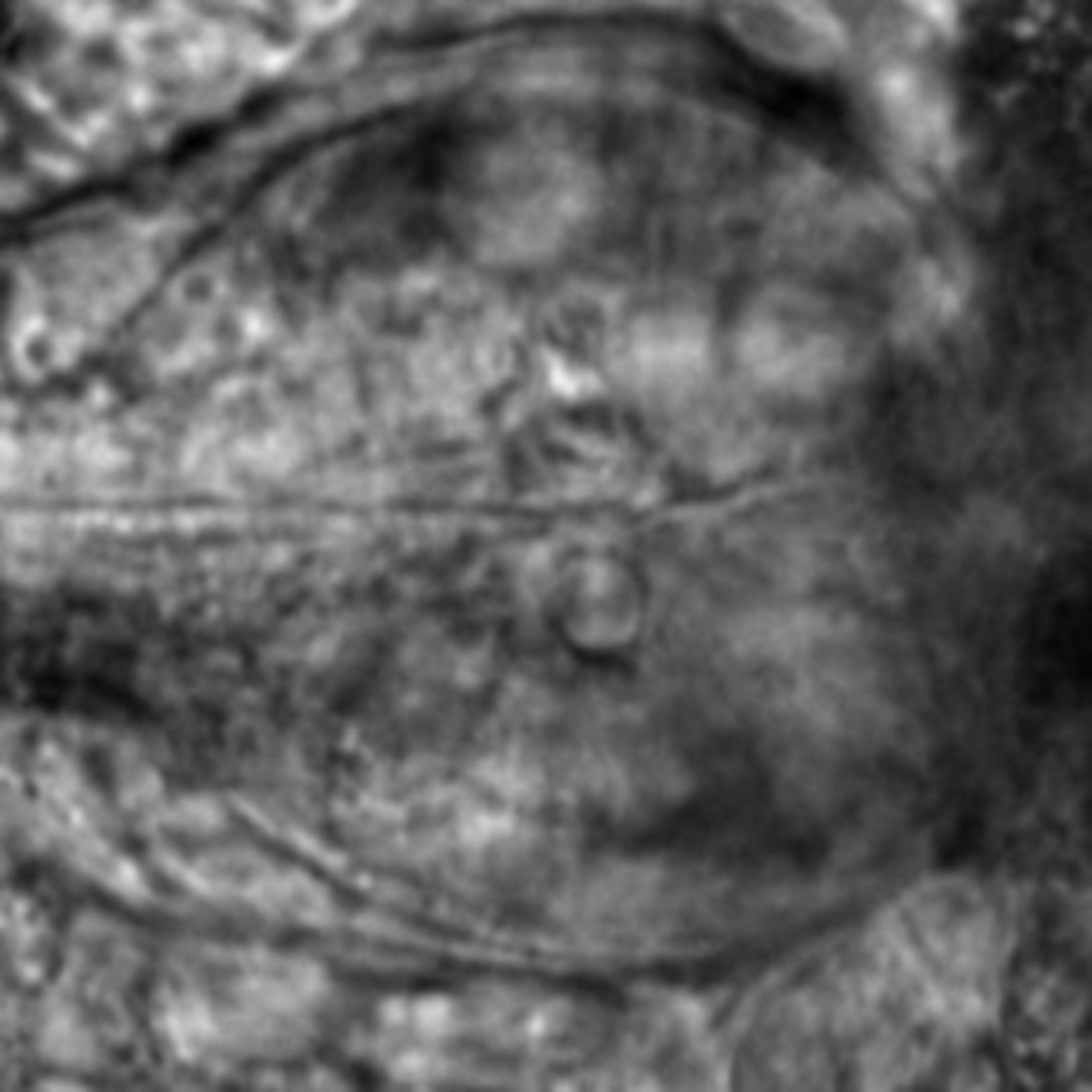 Caenorhabditis elegans - CIL:2632
