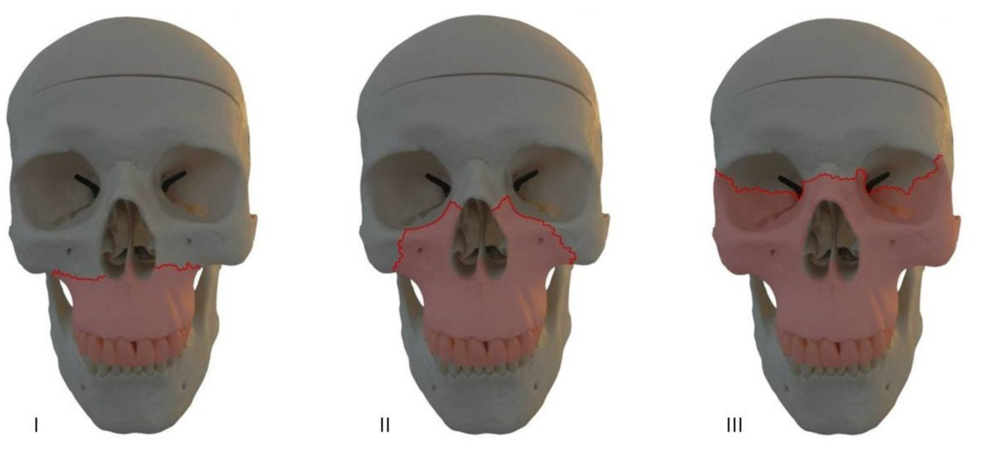 Le fratture Fort del cranio