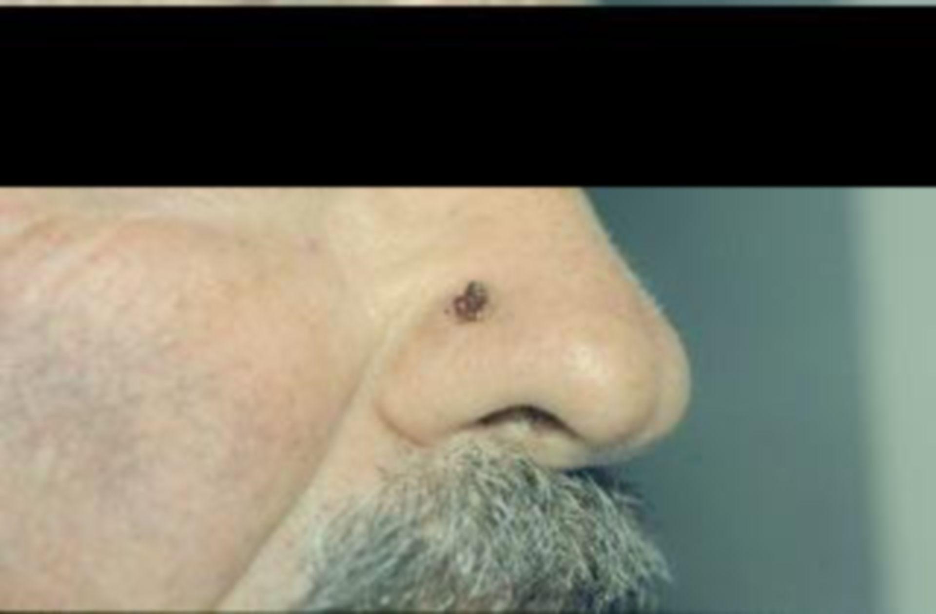 Hautkrebs vor OP