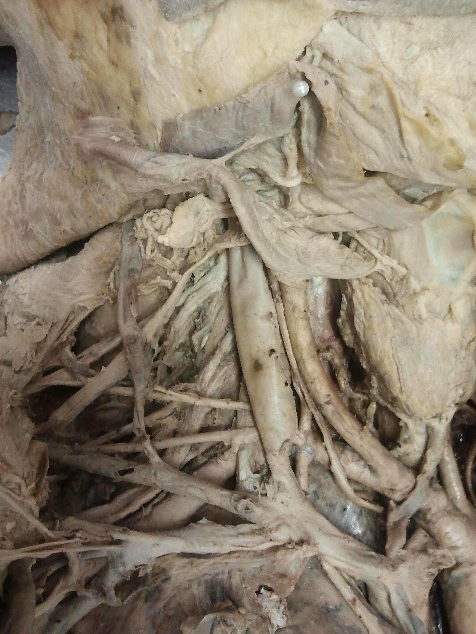 Truncus brachiocephalicus (3)