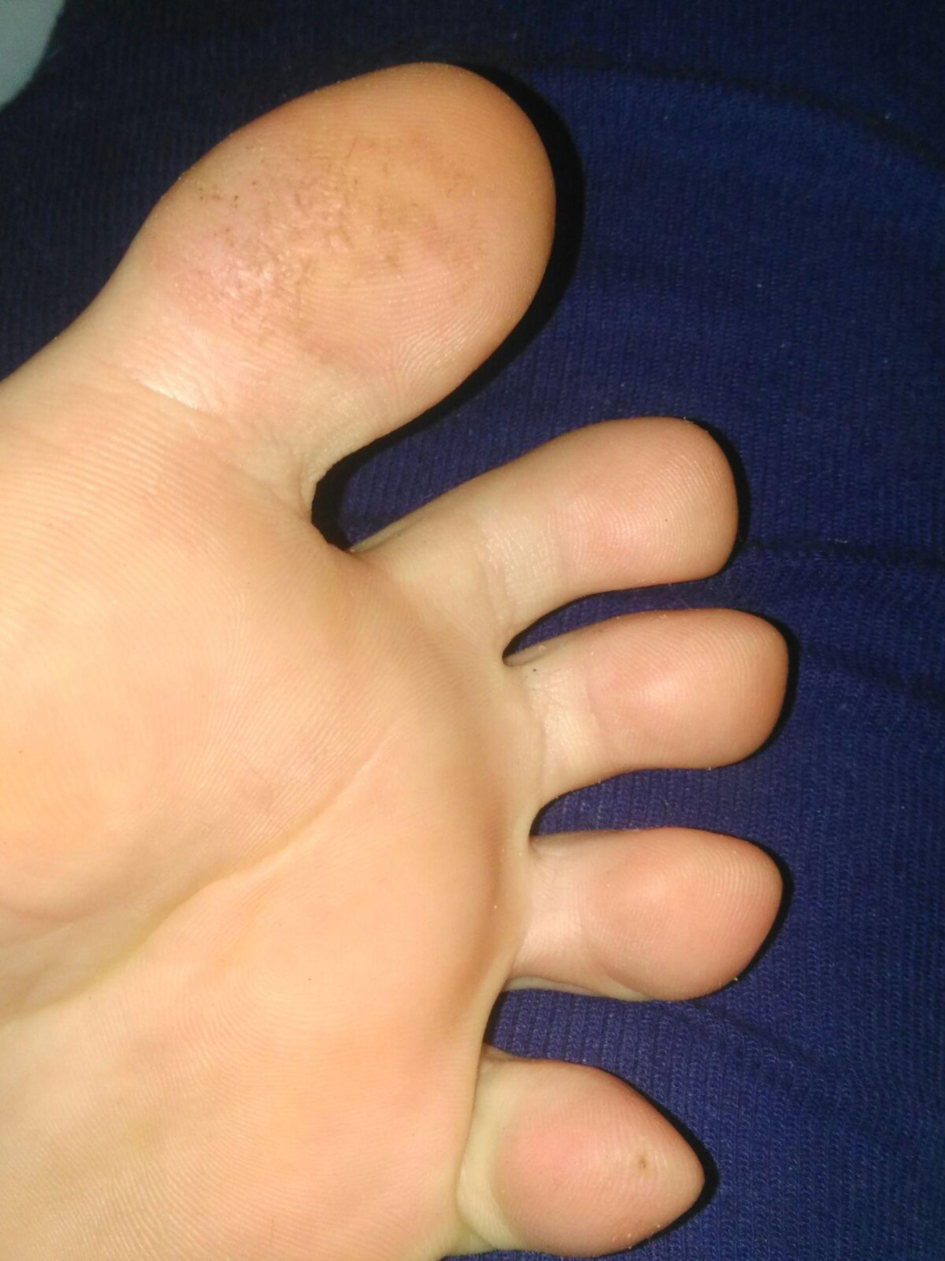 Hautveränderung Fuß