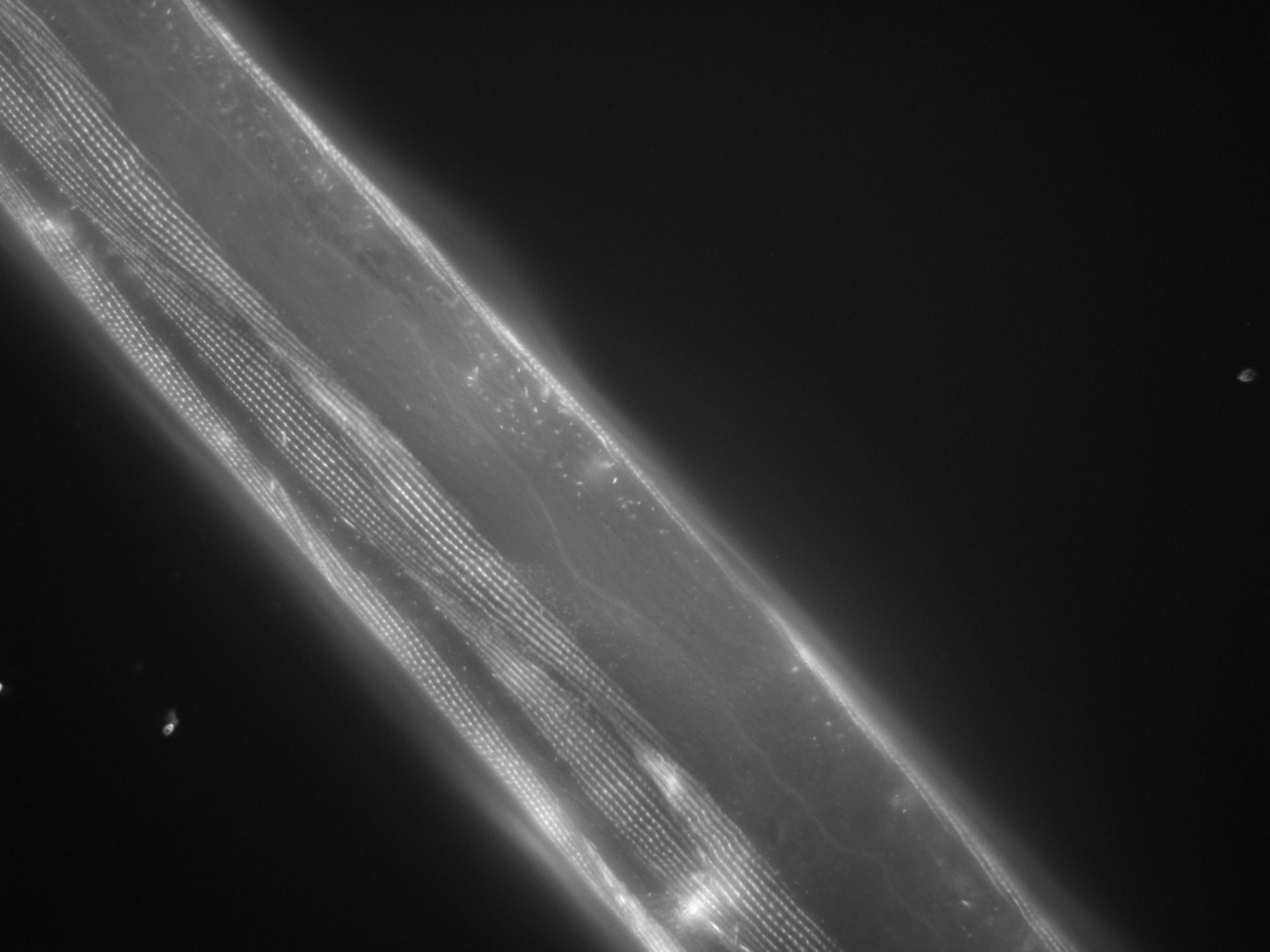 Caenorhabditis elegans (filamento di actina) - CIL:1018