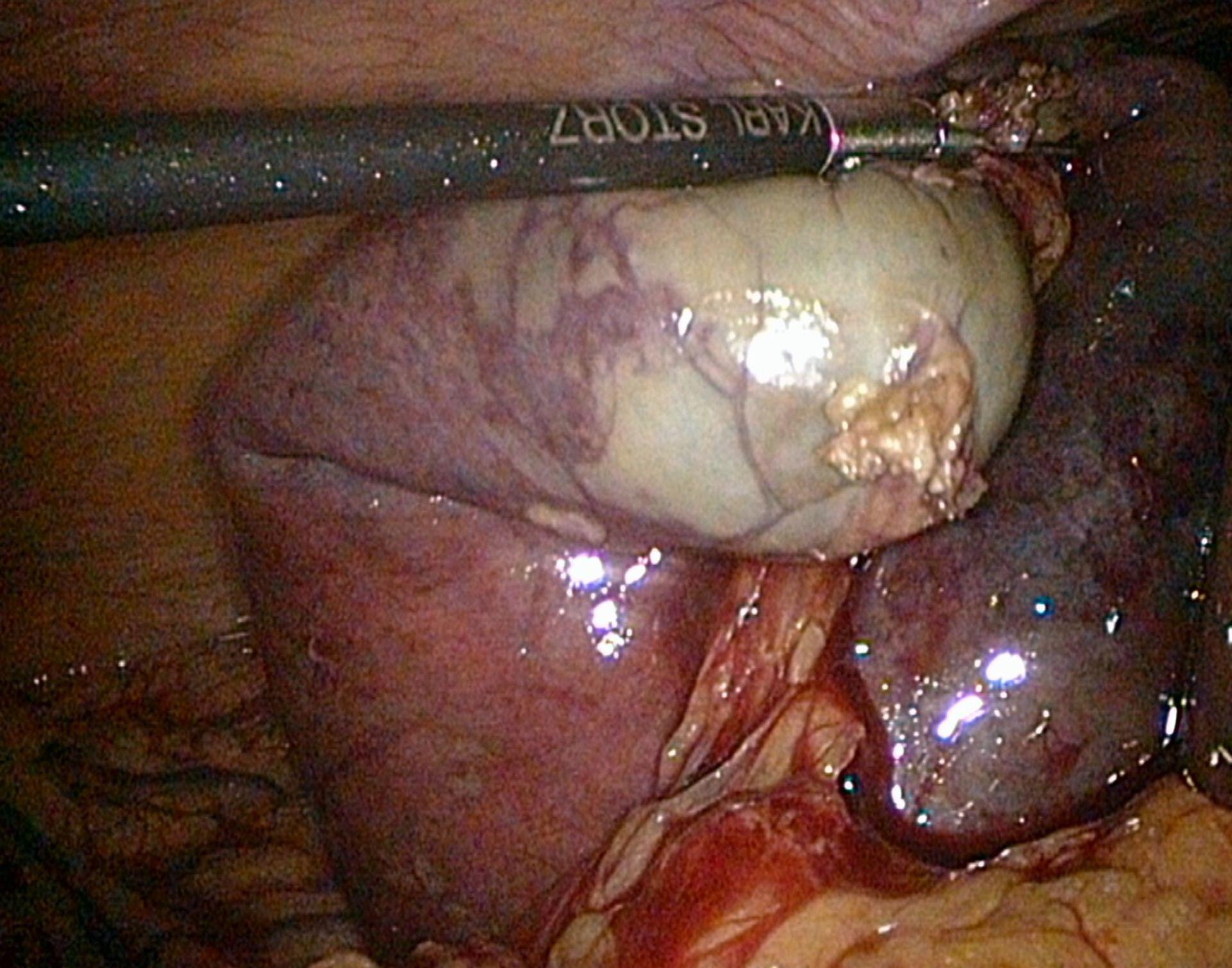Akute Cholecystitis-Laparoskopie