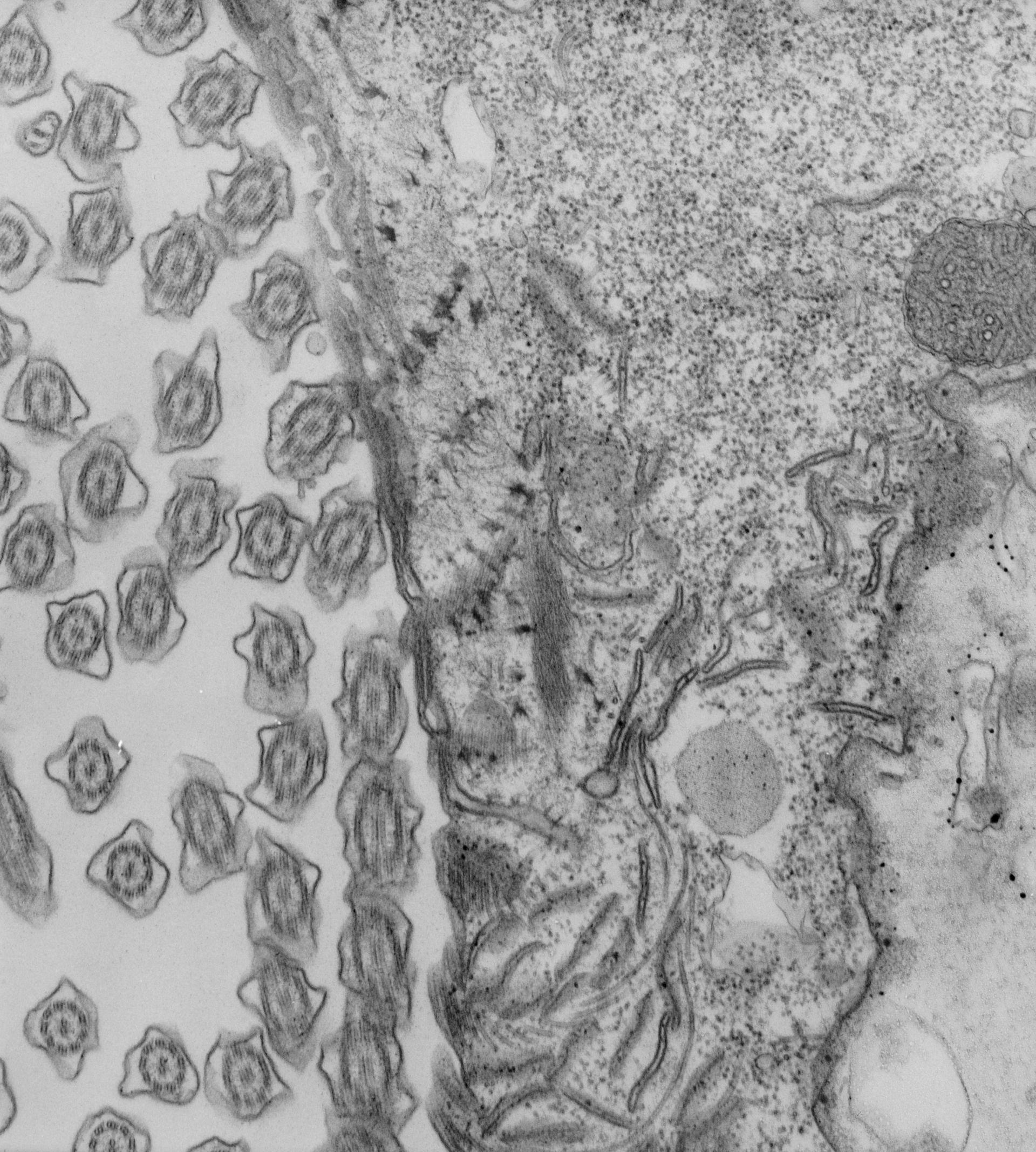 Paramecium caudatum (apparato orale) - CIL:39167