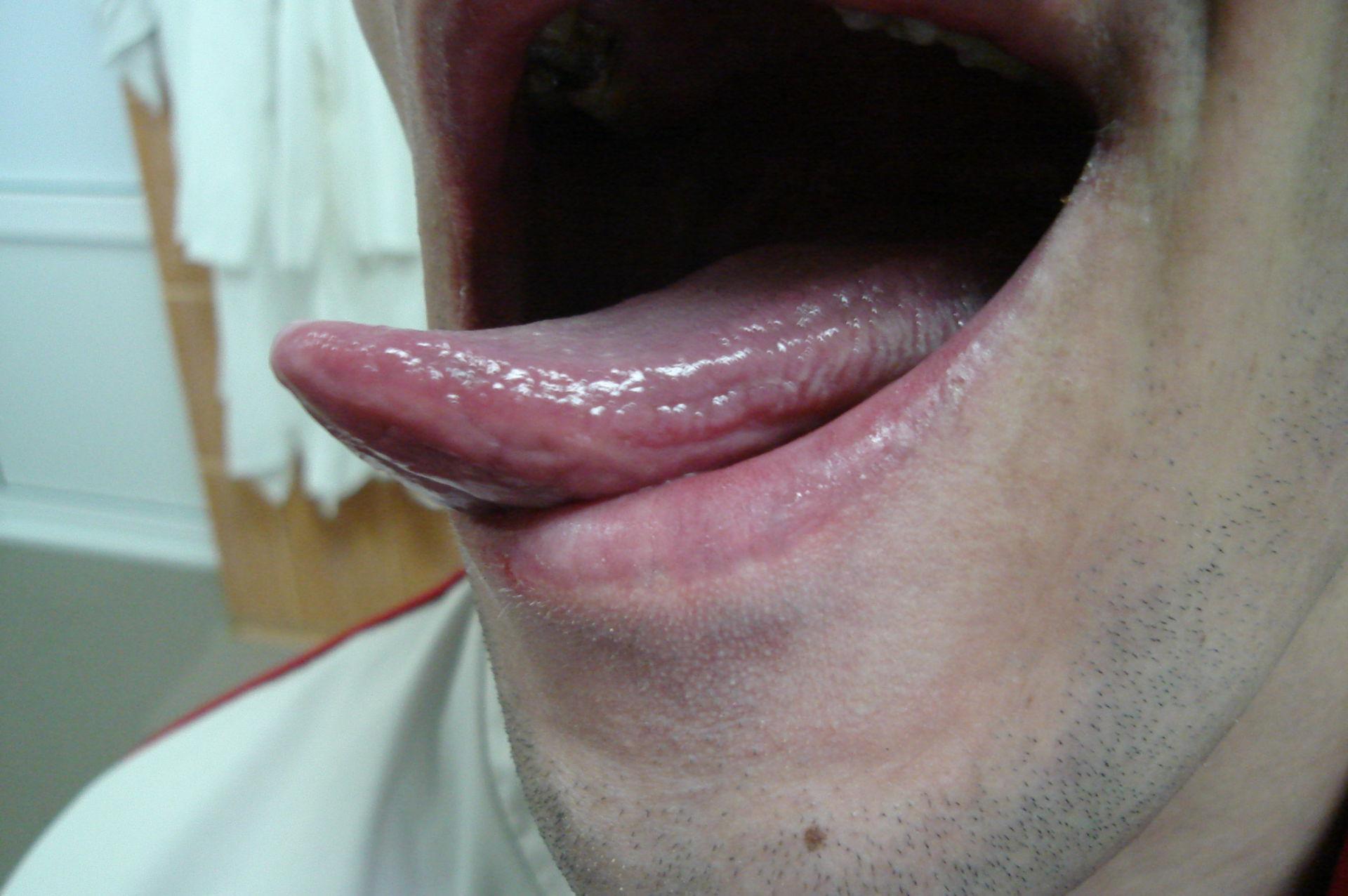 Leucoplachia della lingua