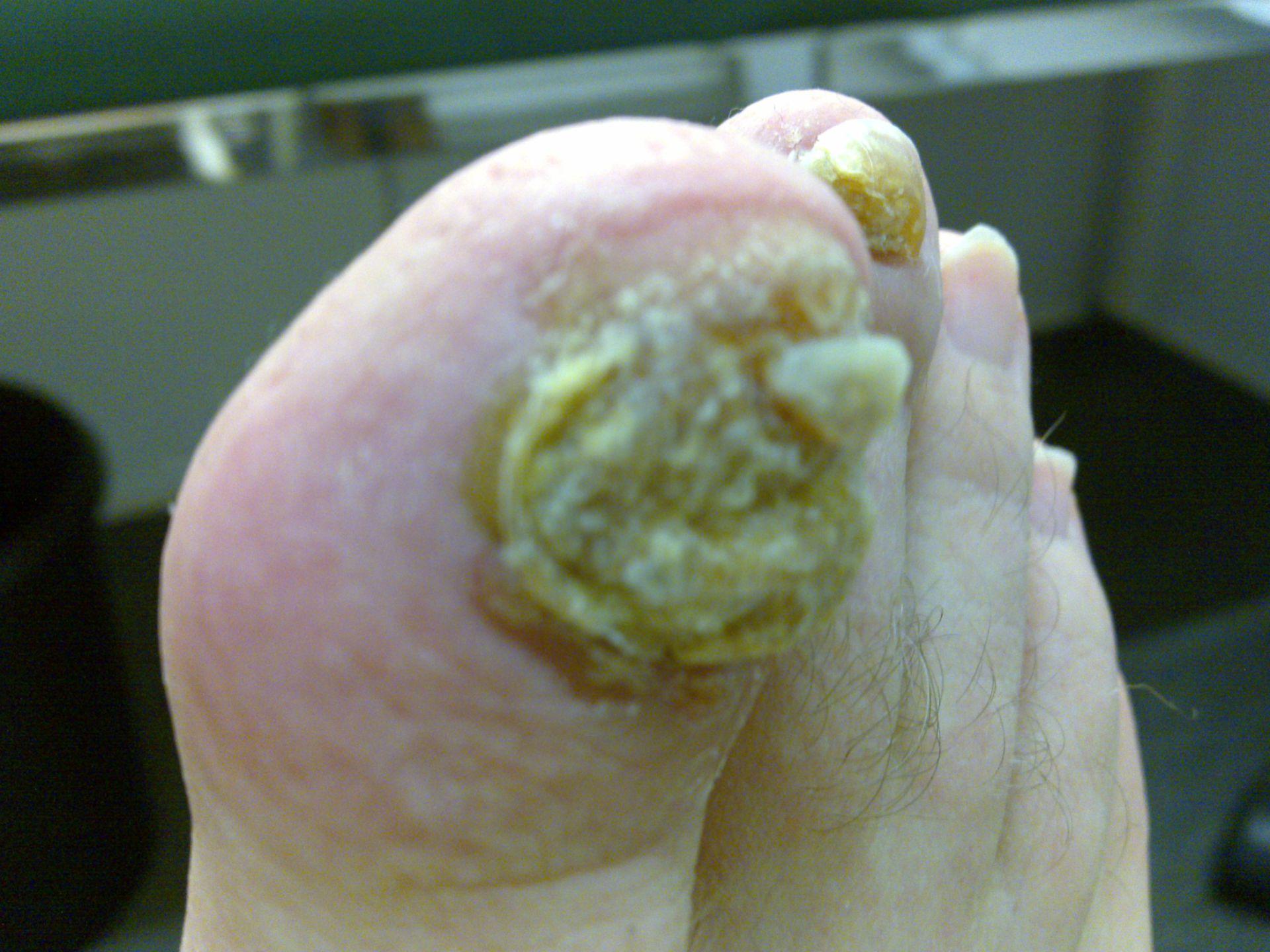 psoriasi delle unghie