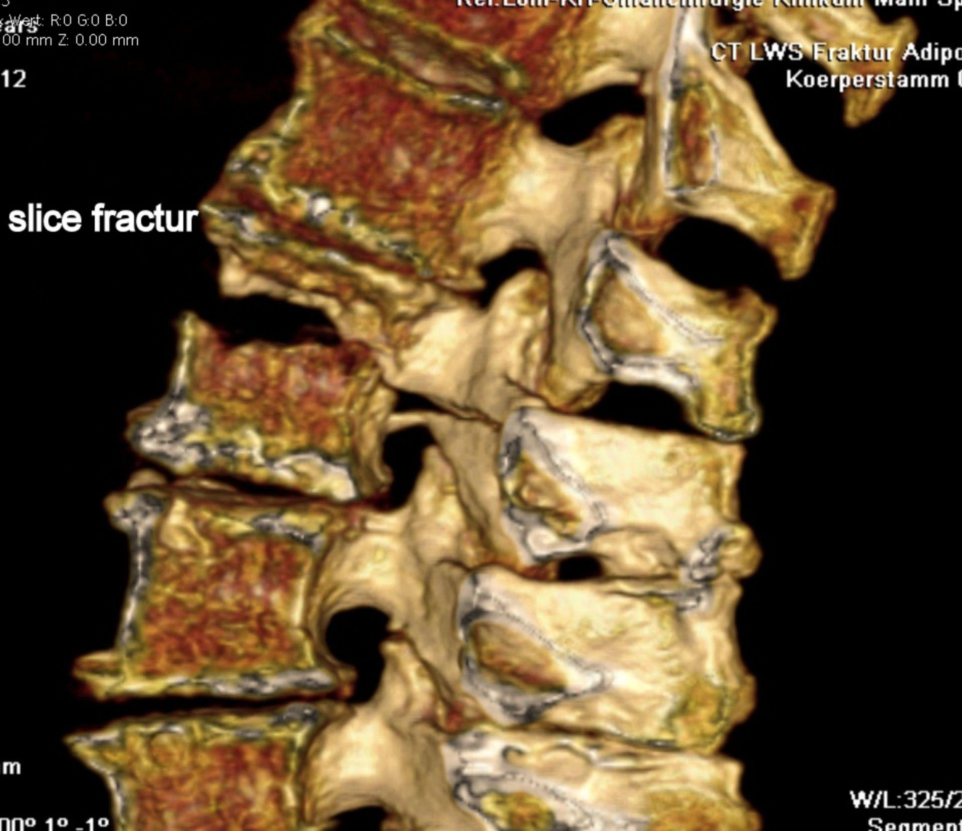 Fractura vertebral- fractura en rebanda- reconstrucción por TC