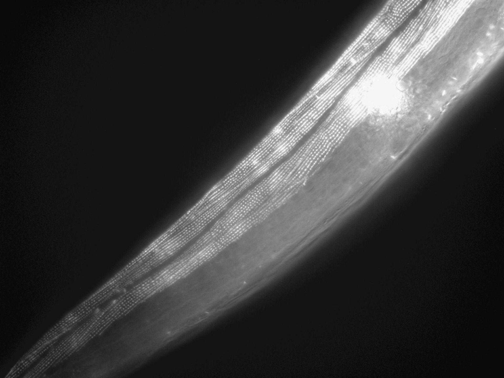 Caenorhabditis elegans (filamenti di actina) - CIL:1023