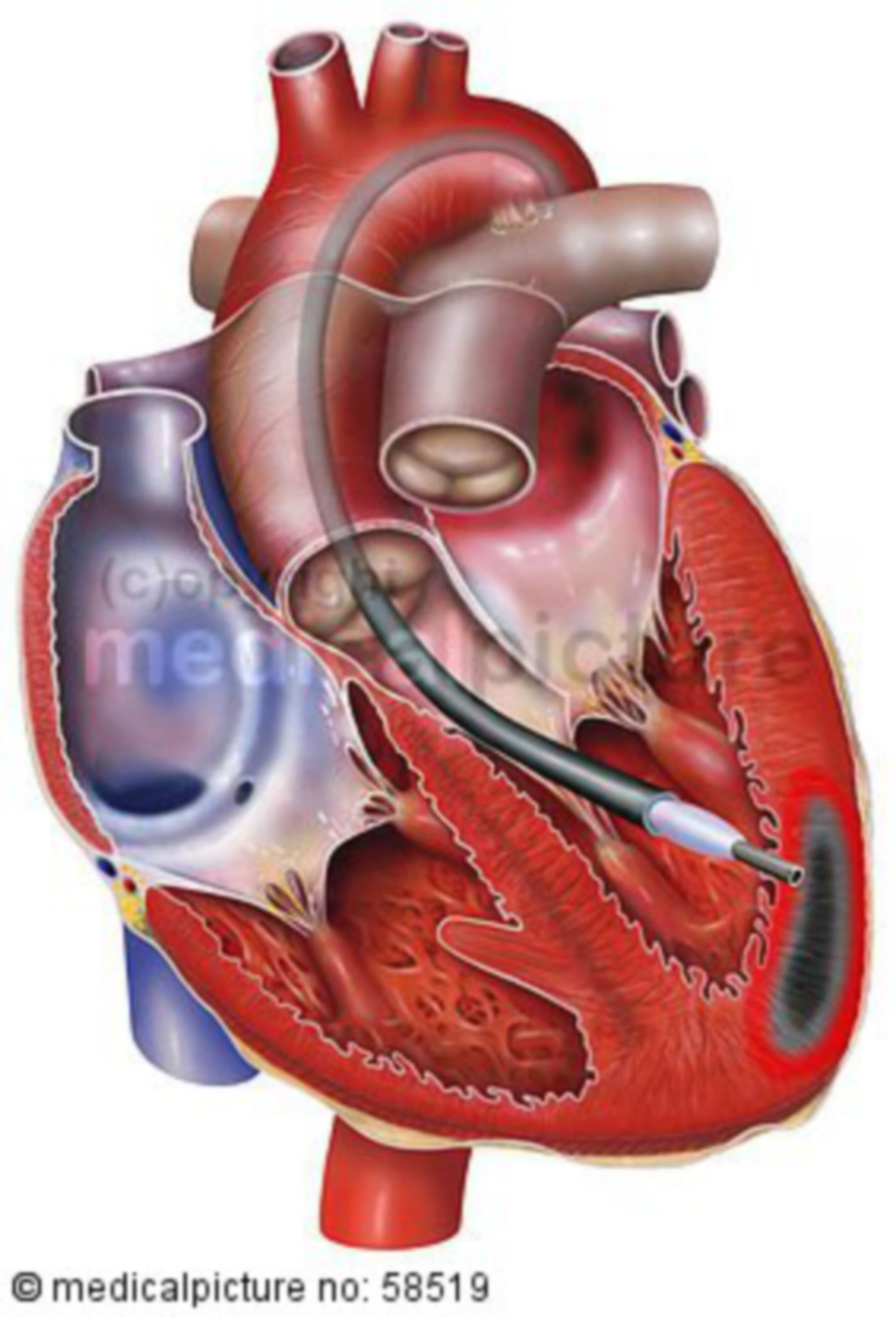 Cardiac stem cell therapy