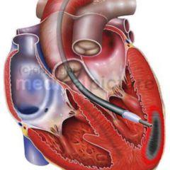 Herzinfarkt Doccheck Flexikon