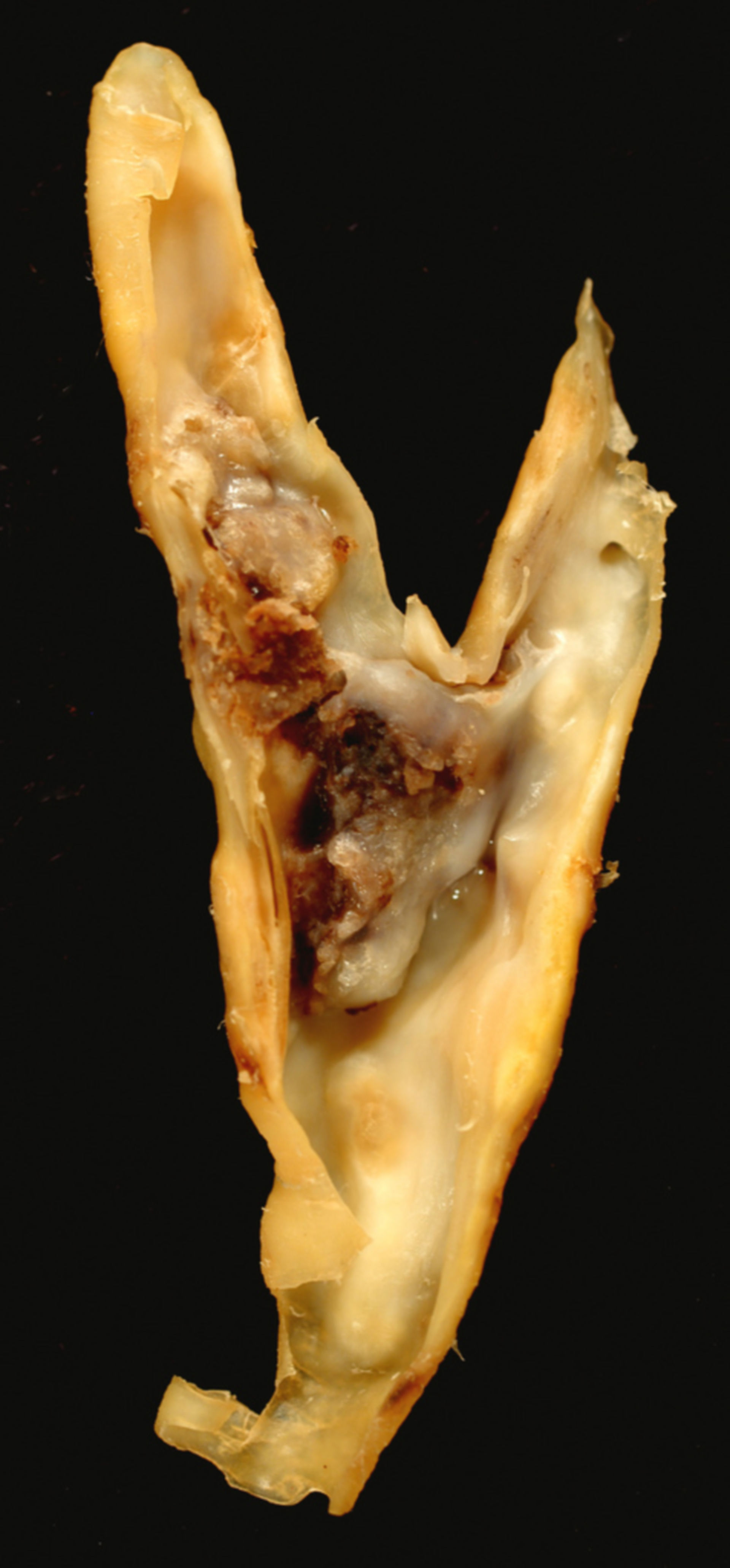 Placca carotidea