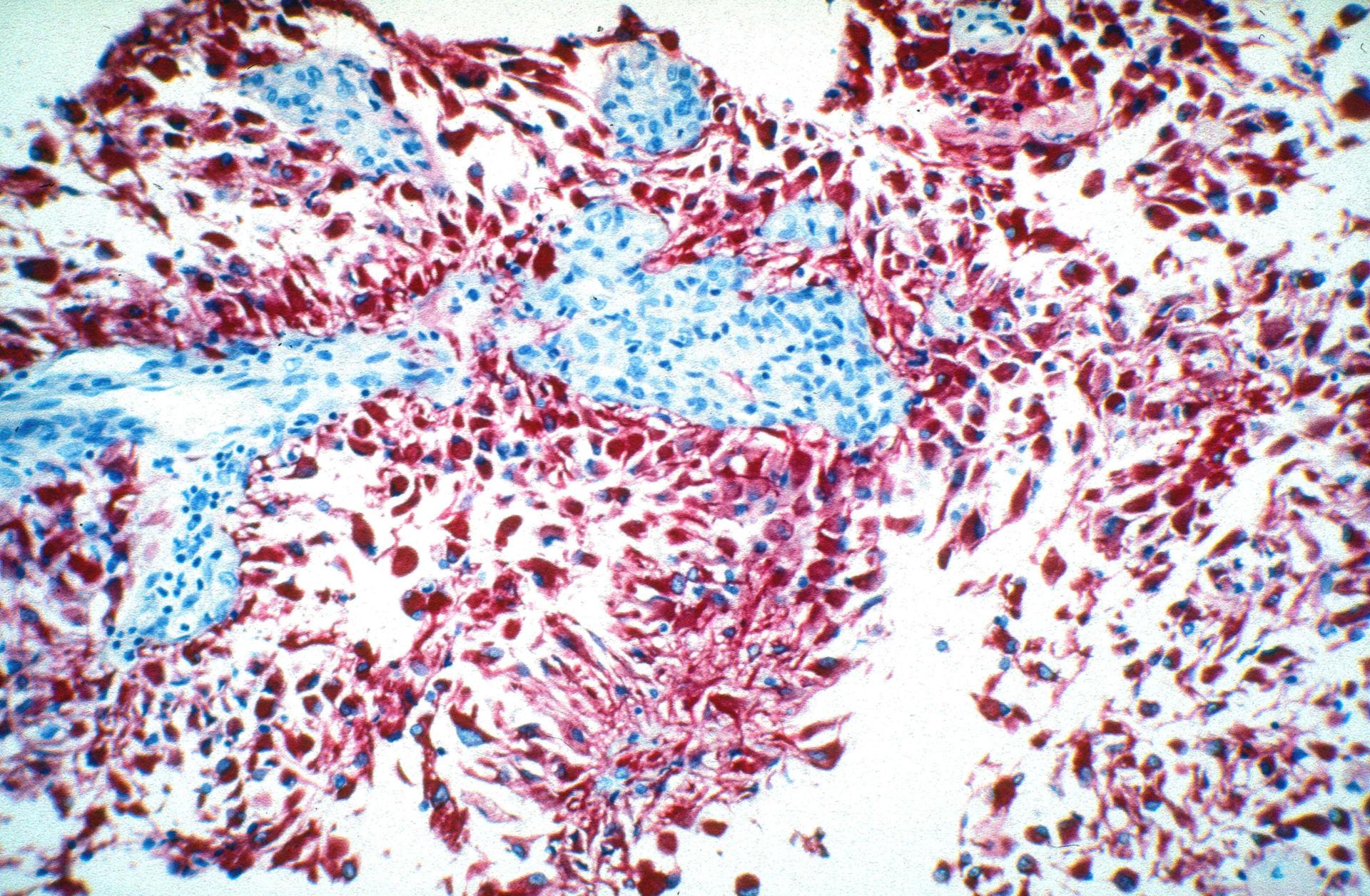 Glioblasti e astroblasti di un glioblastoma-astroblastoma di IV grado - GFAP