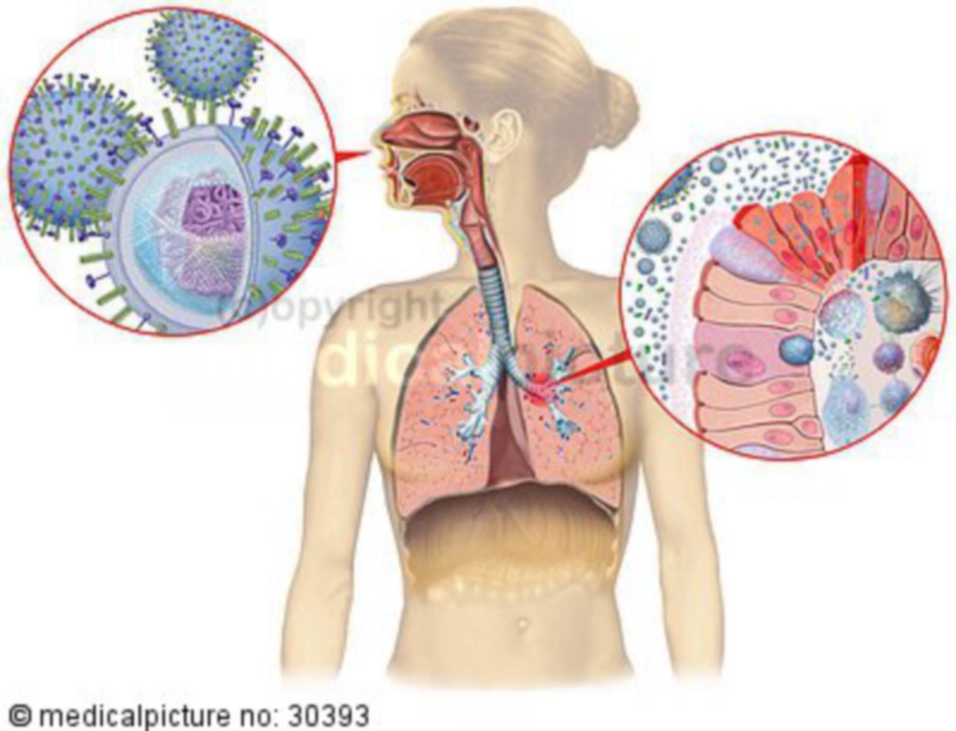 Immune reaction of the mucosa to viral infection