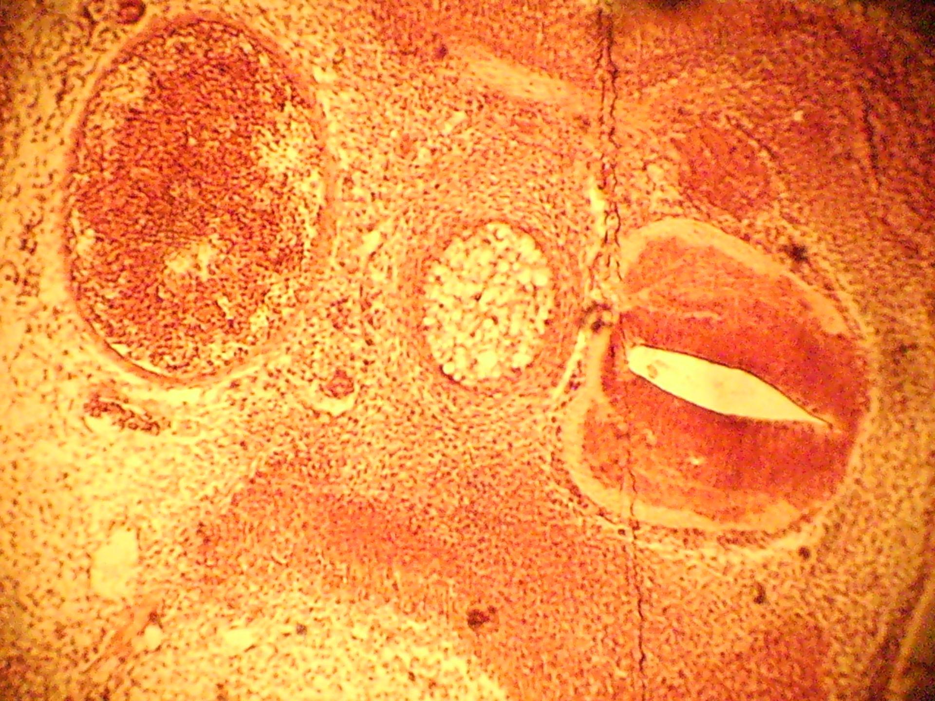 Hühnchenembryo