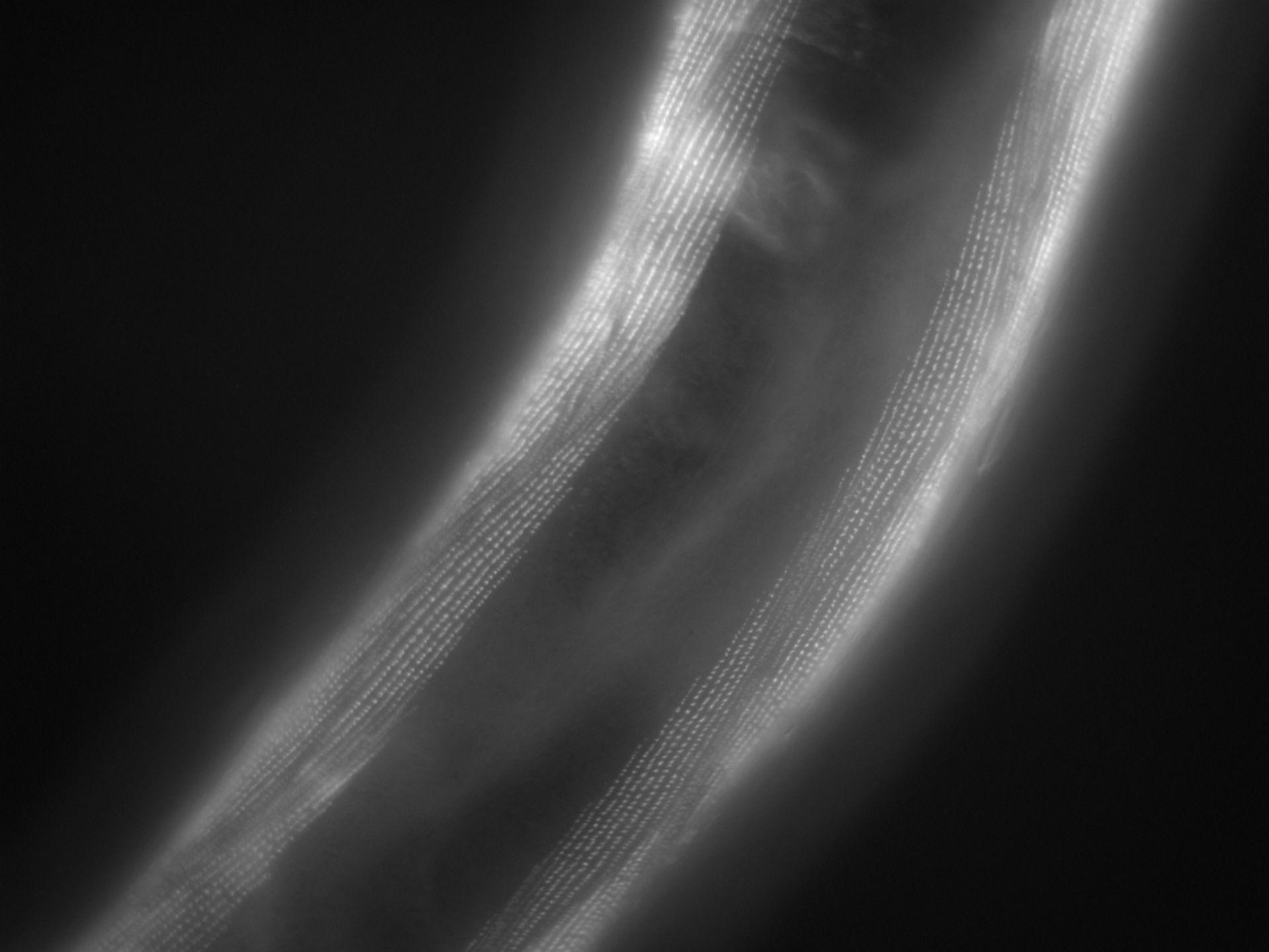 Caenorhabditis elegans (Actin filament) - CIL:1193