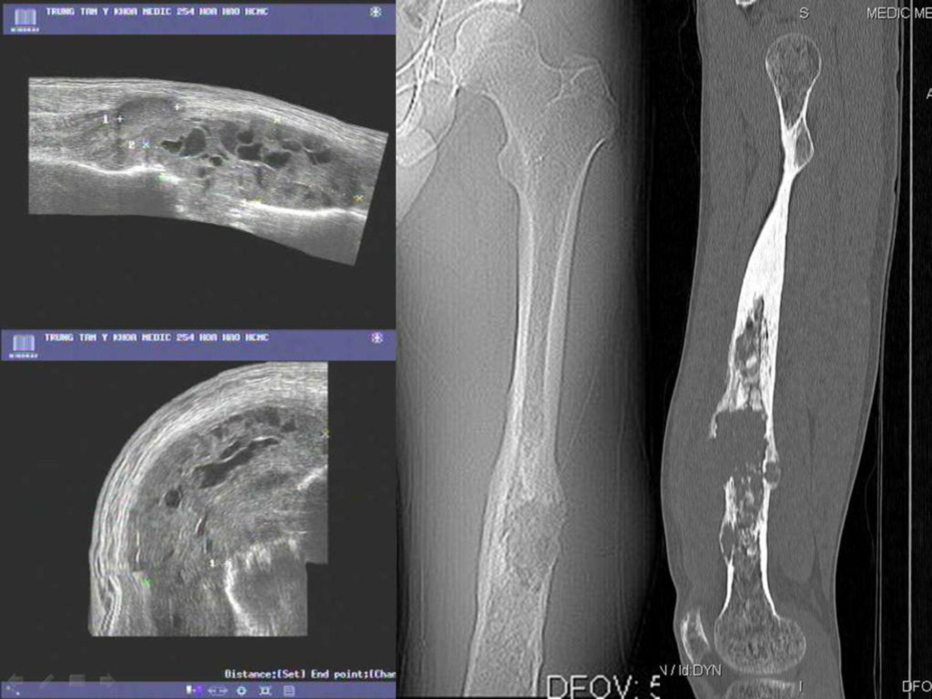Tumor grande de células en el femur