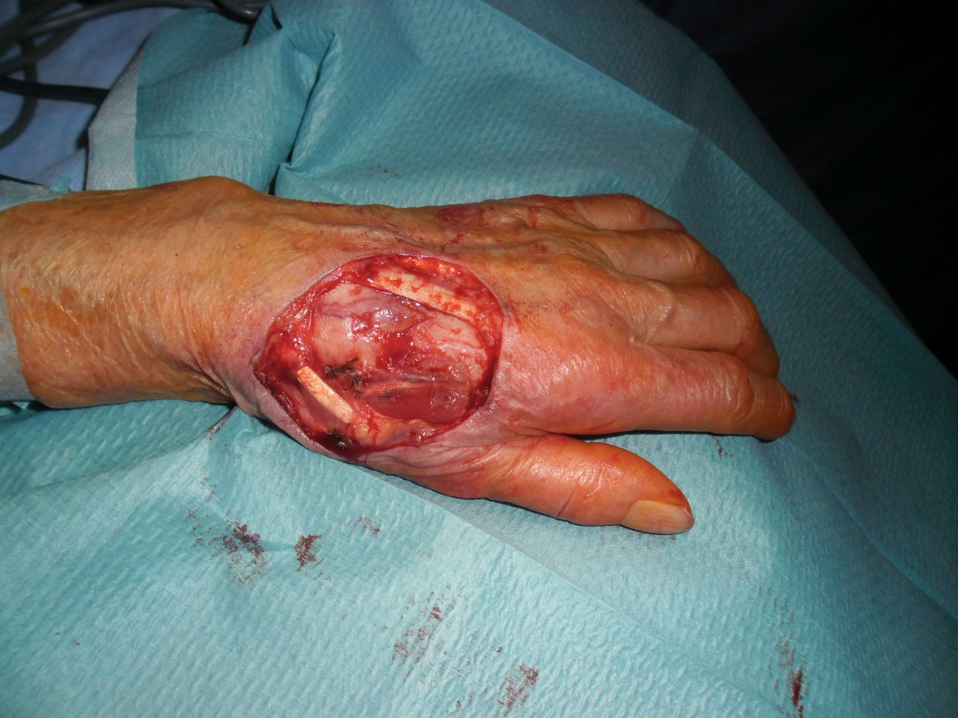 Tumor hand 2